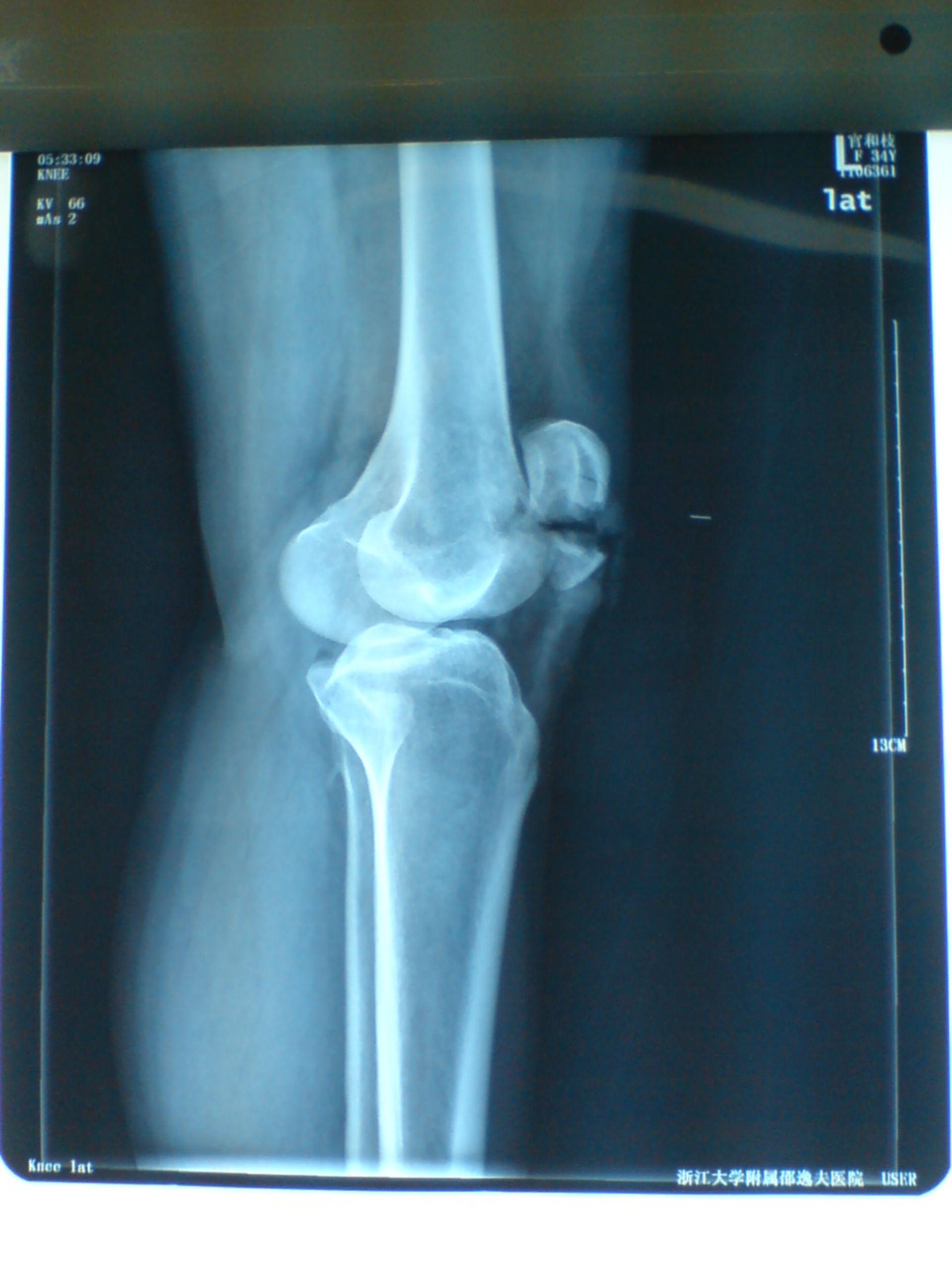 Transverse patella fracture