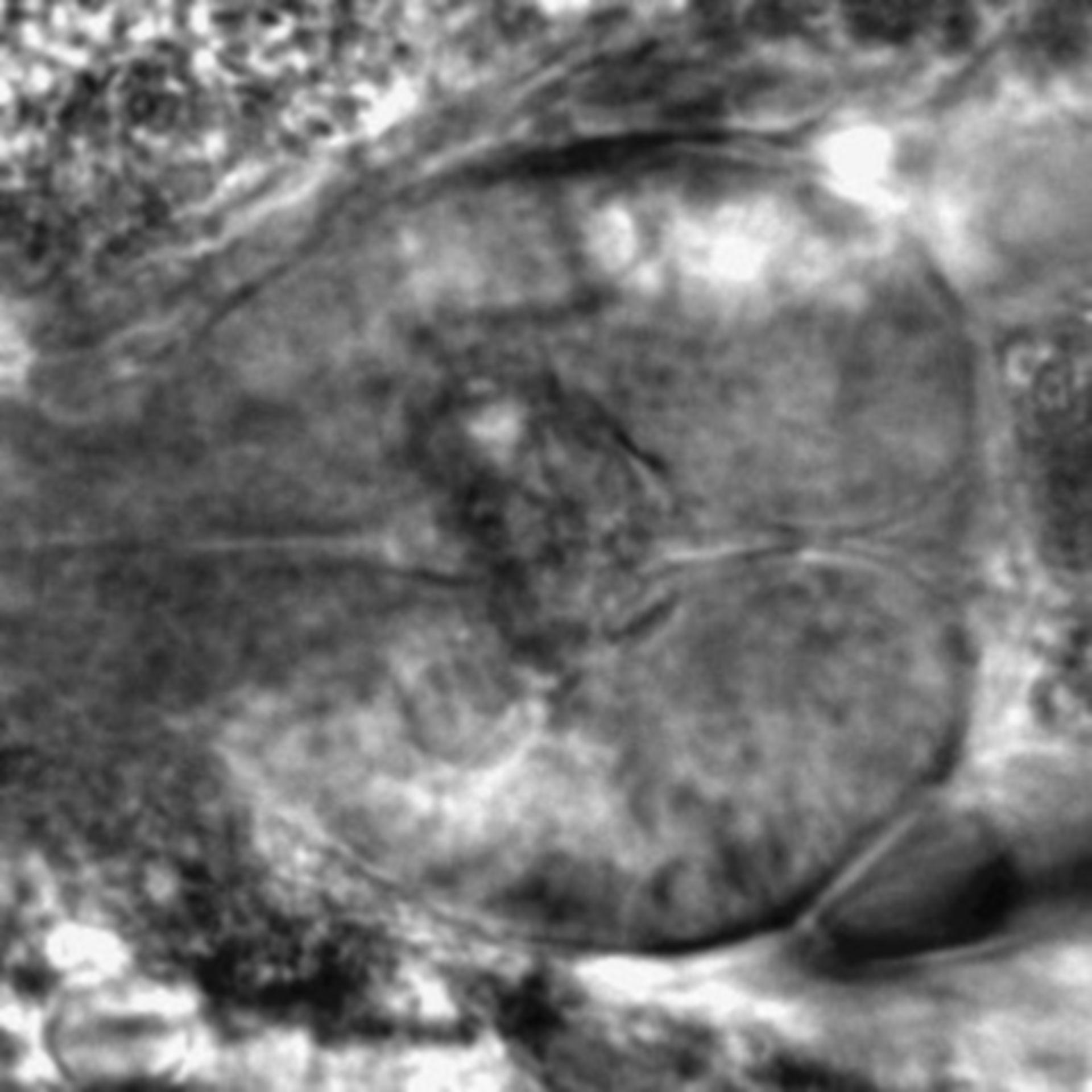Caenorhabditis elegans - CIL:2230