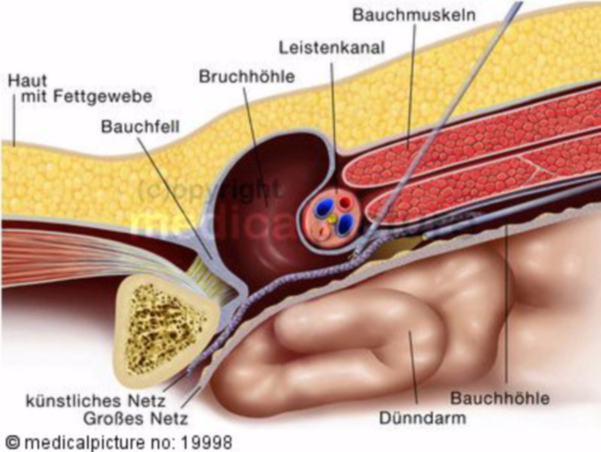 Inguinal hernia, minimally invasive surgery
