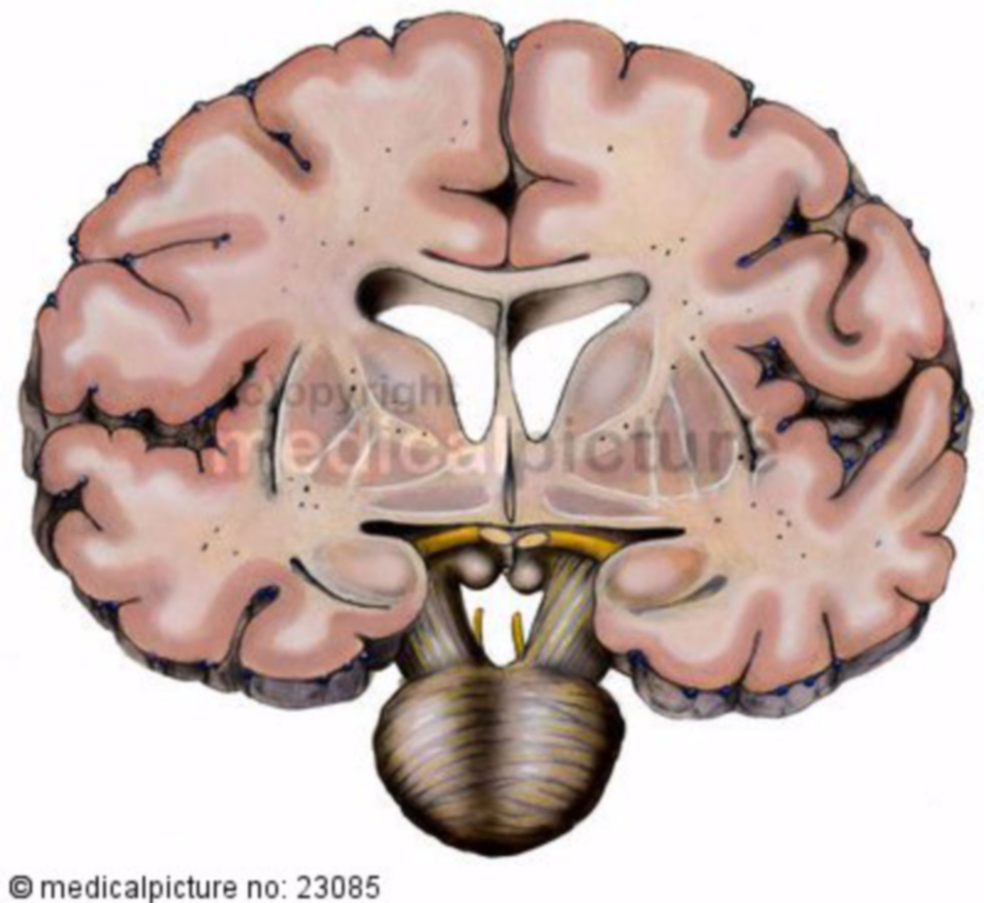 Frontal Section of a Brain