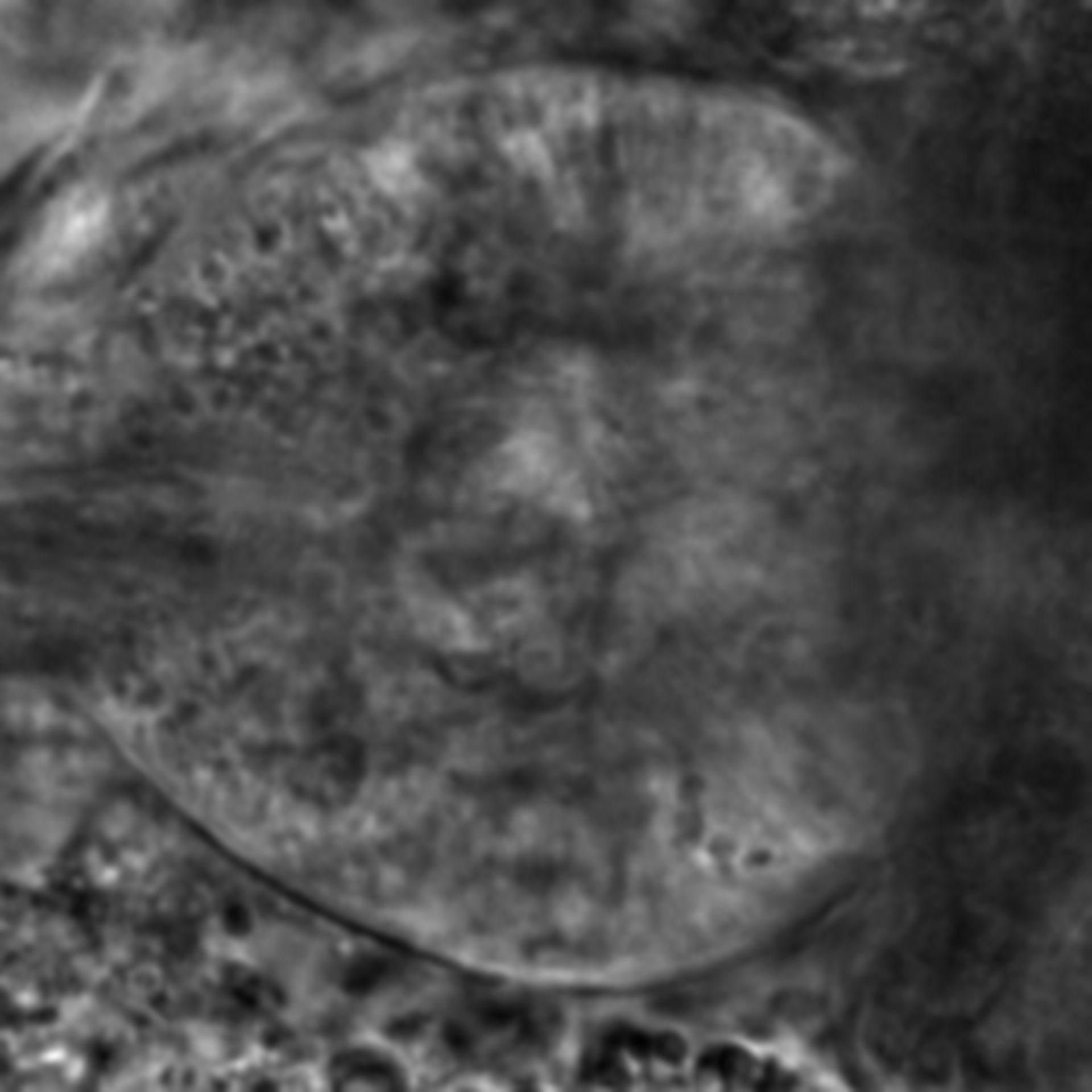 Caenorhabditis elegans - CIL:2555