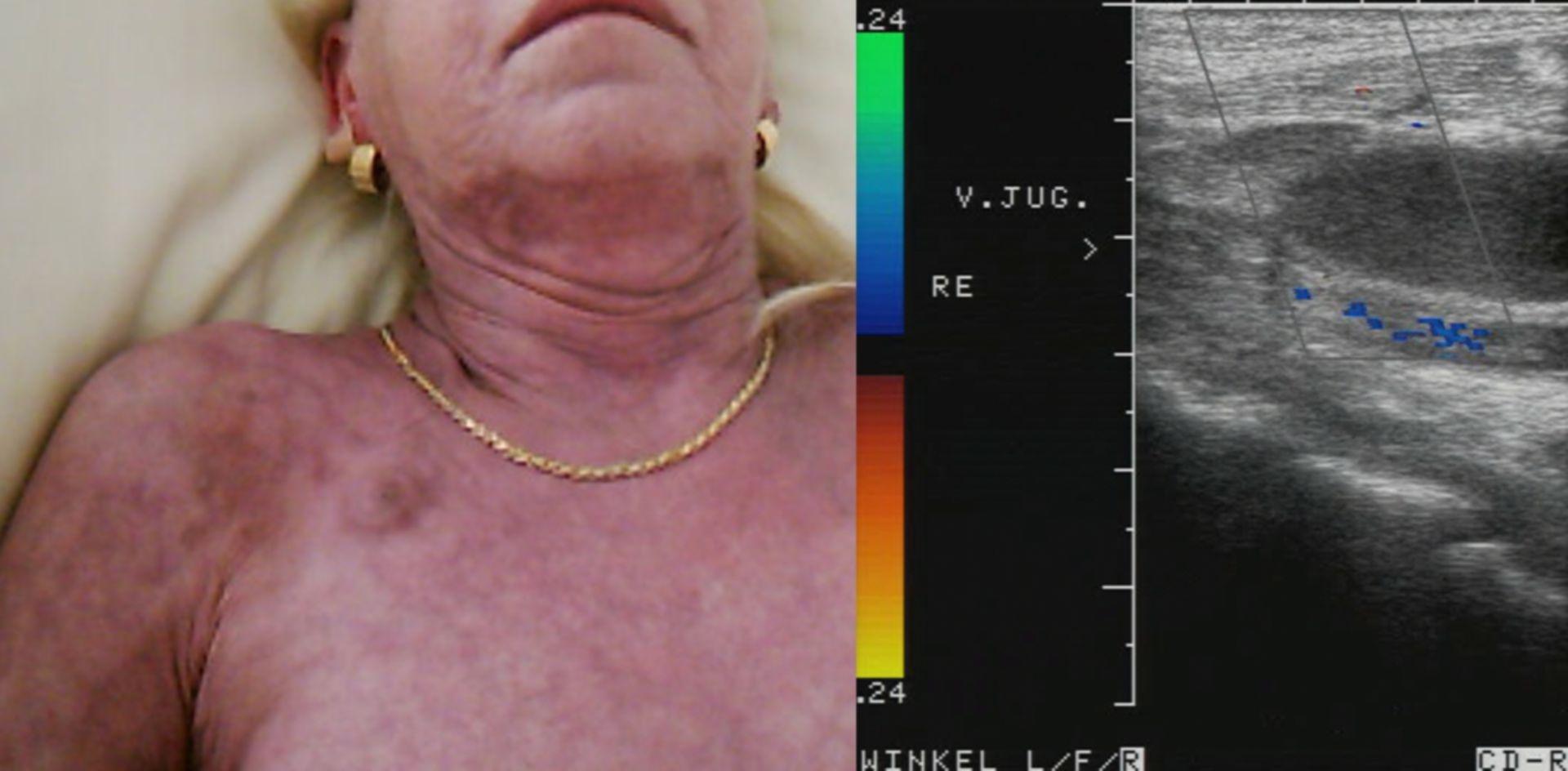 Thrombosis of right jugular vein