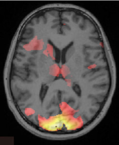 scan_of_brain_showing_information_associated_with_a_fear_memory