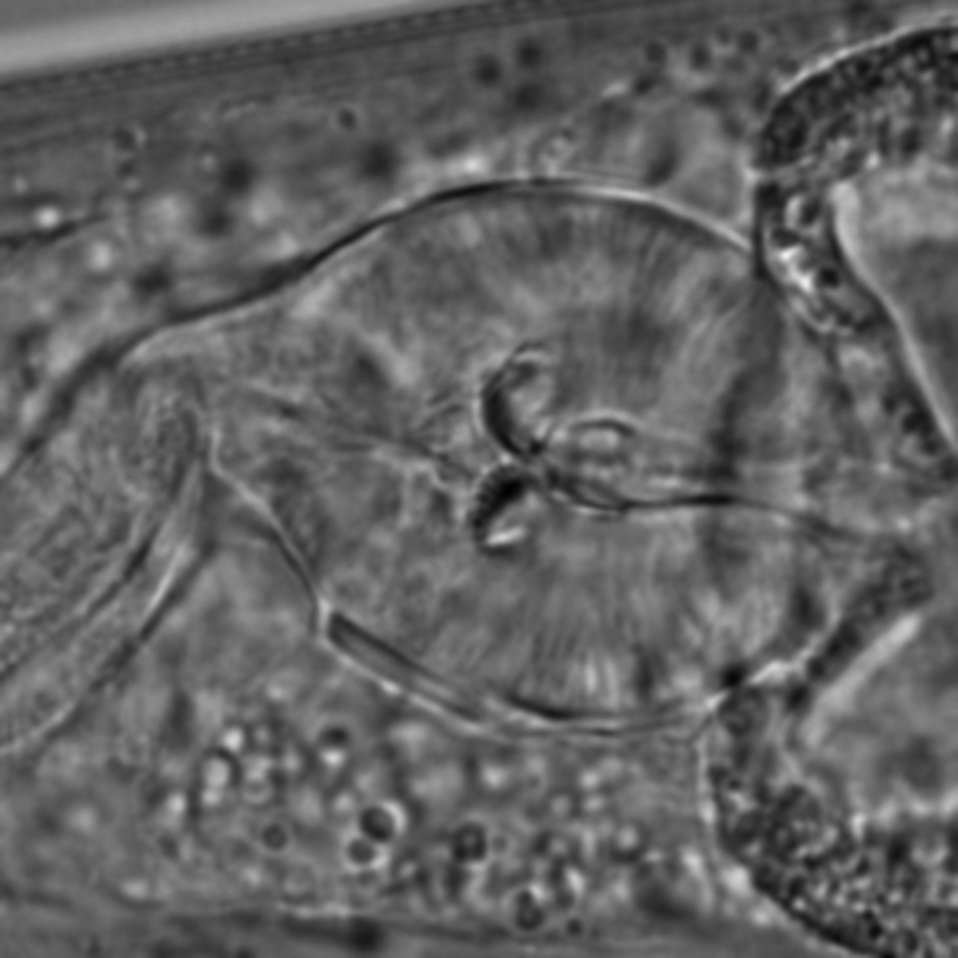 Caenorhabditis elegans - CIL:1631