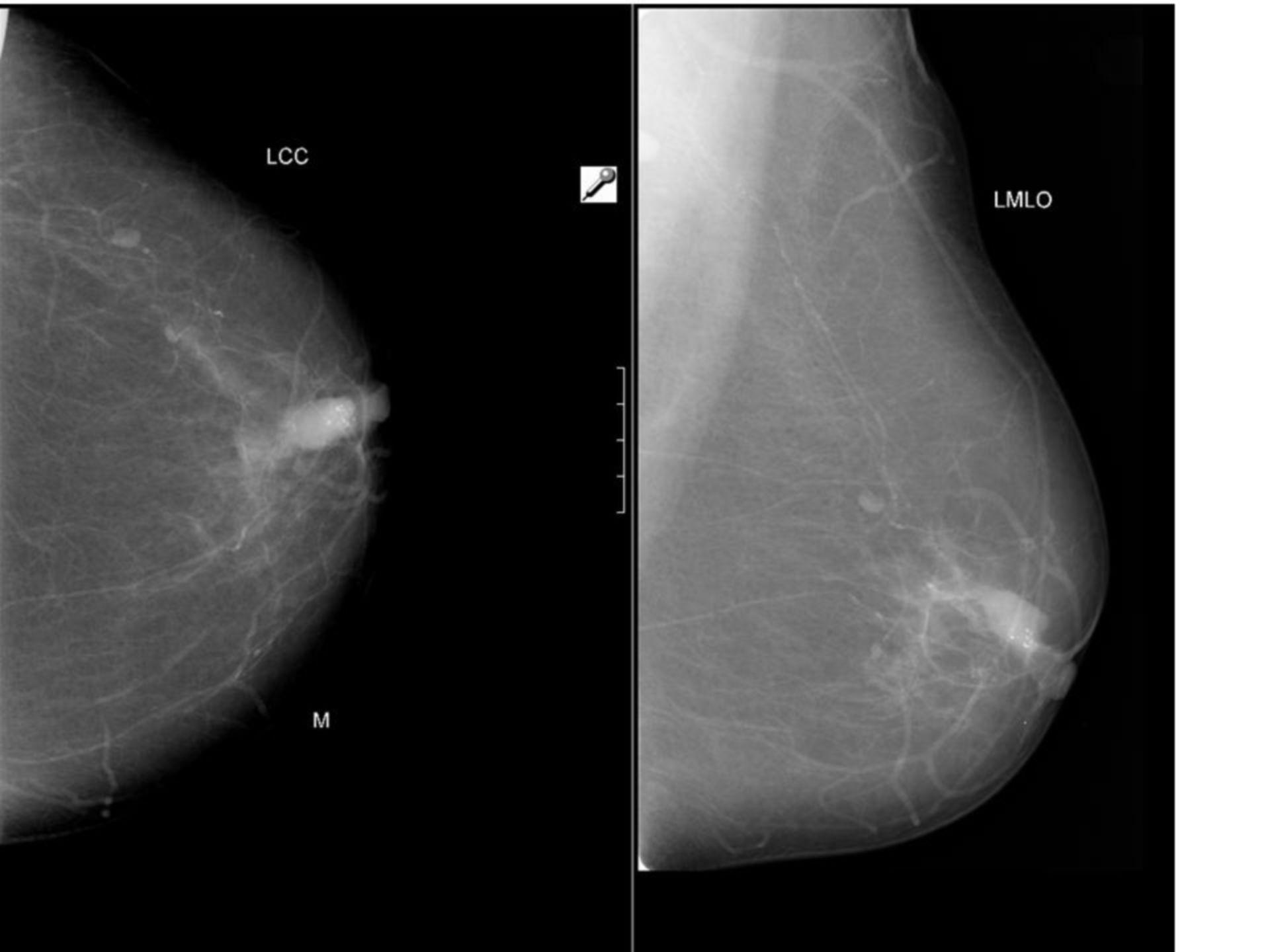 Carcinoma intraduttale