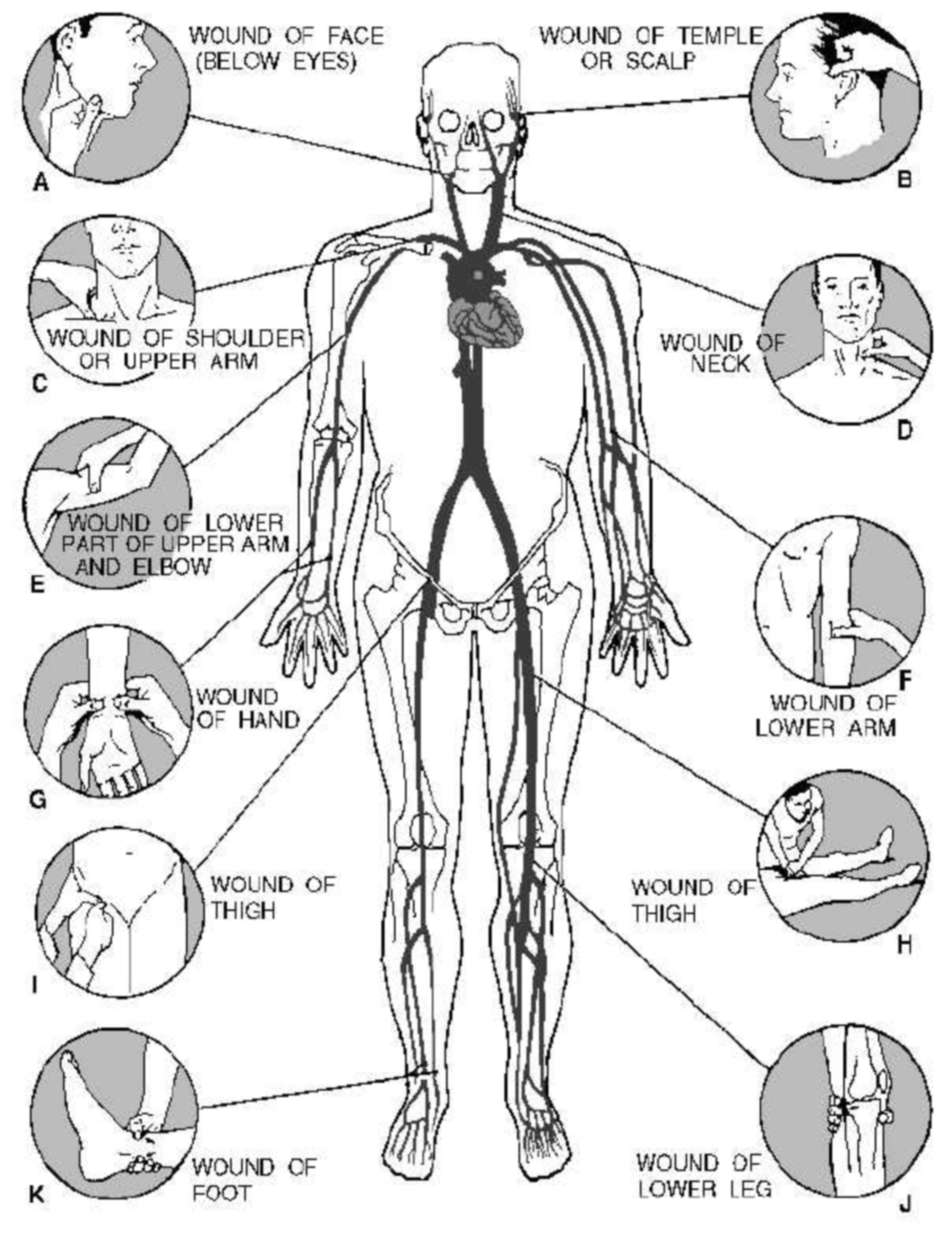 Diagram showing th location of the pressure points that can be used to control bleeding.