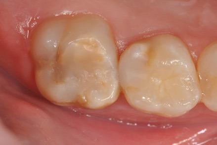 MIH-Zähne mit Kompositfüllungen