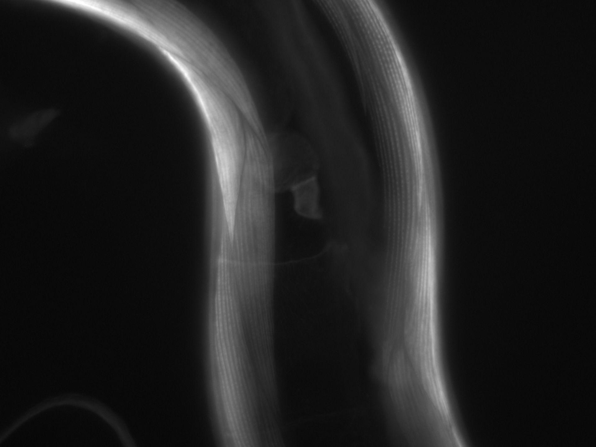 Caenorhabditis elegans (Actin filament) - CIL:1058