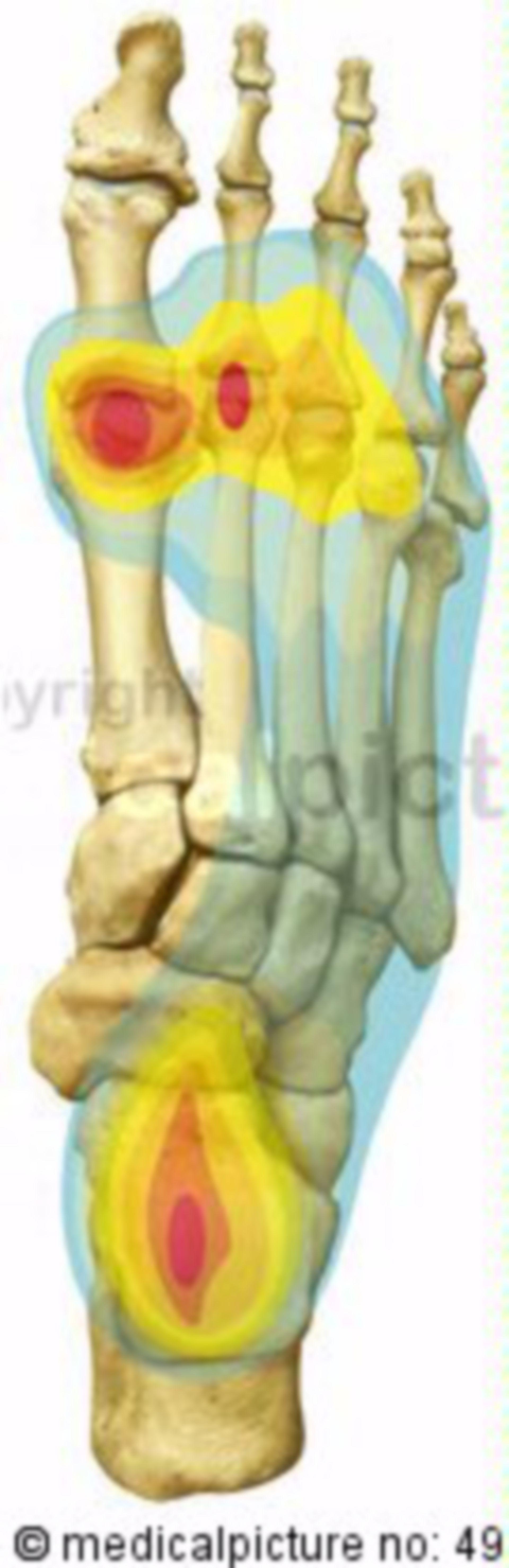 Belastungsschwerpunkte des Fußskeletts