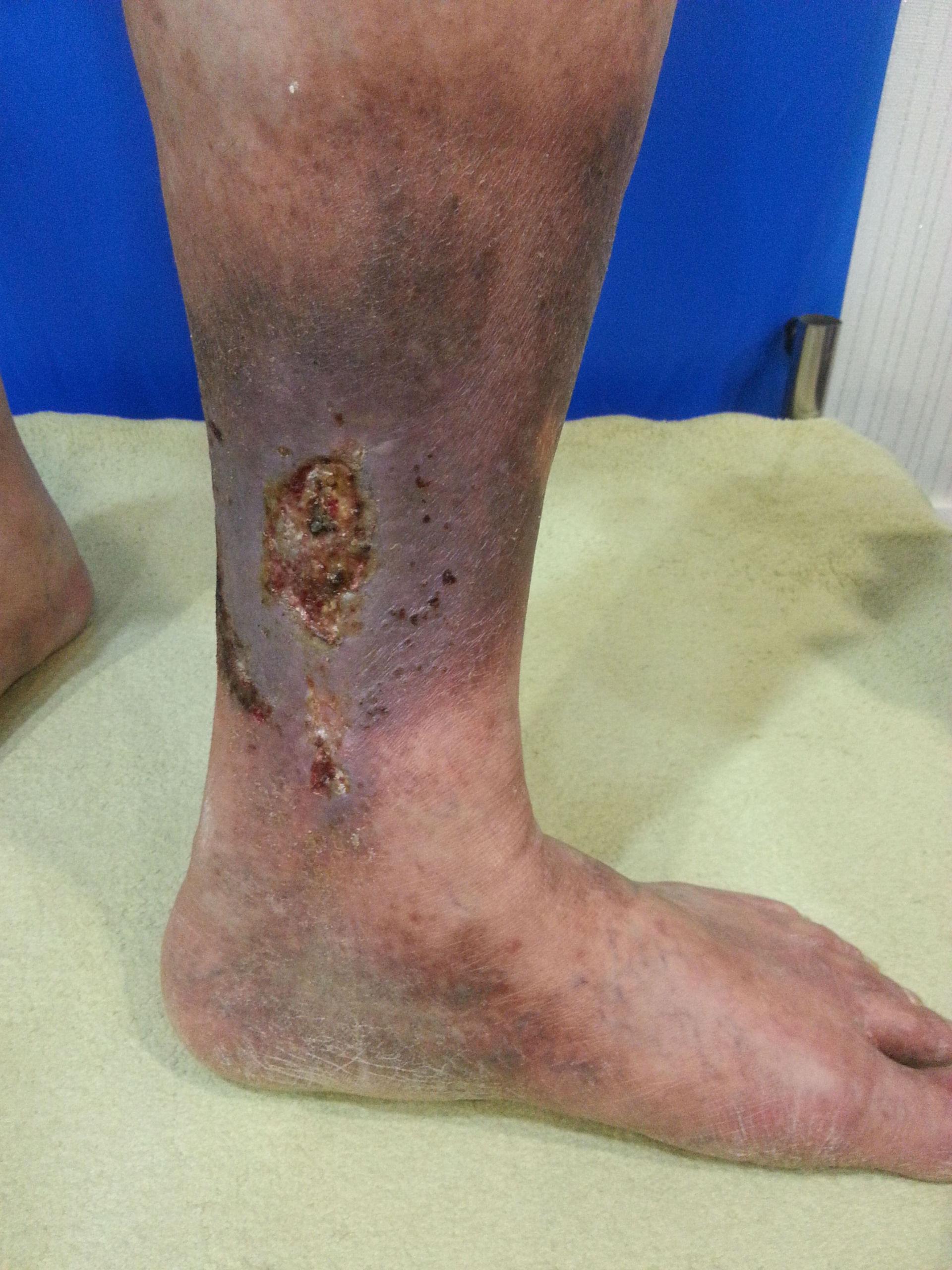Thrombophlebitis mit Ulkus (Yonsei S Hospital; Seoul, Korea)