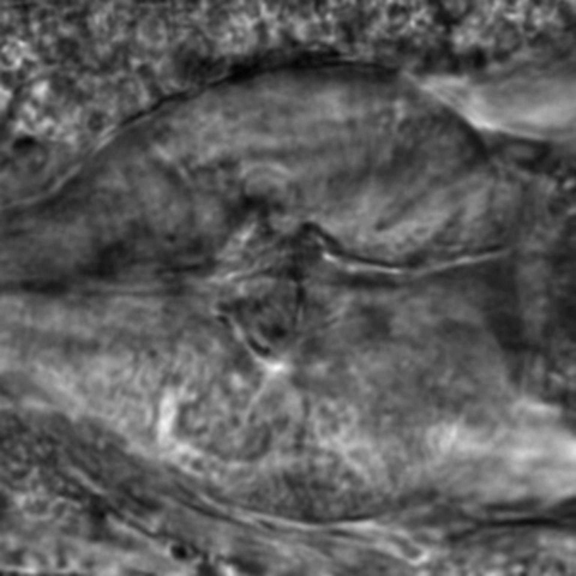 Caenorhabditis elegans - CIL:2796