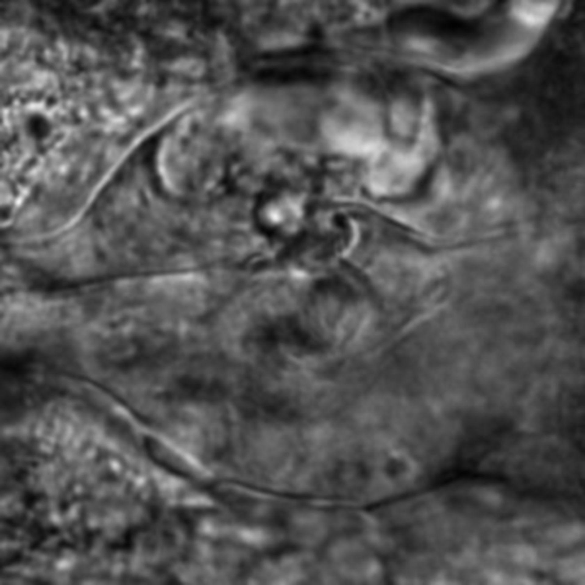 Caenorhabditis elegans - CIL:2715