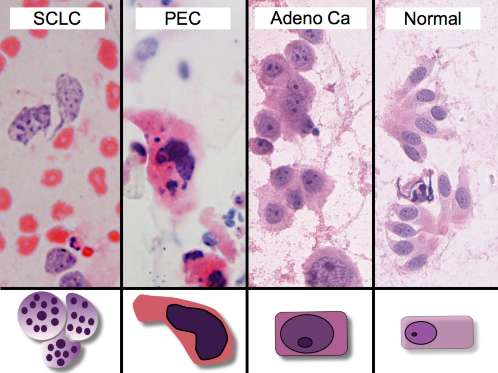 Cytology of the most common tumors of the lung