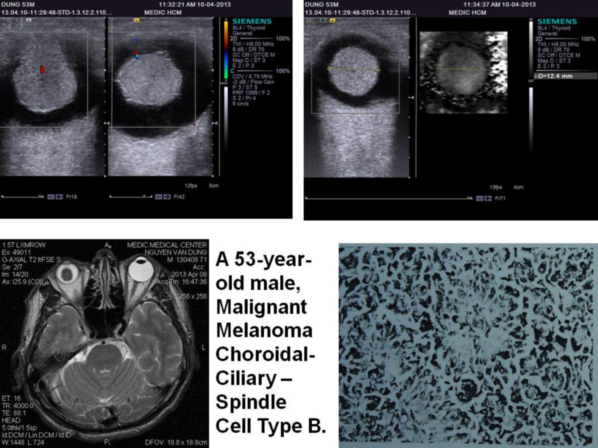 Melanoma maligno ciliar de la coroides