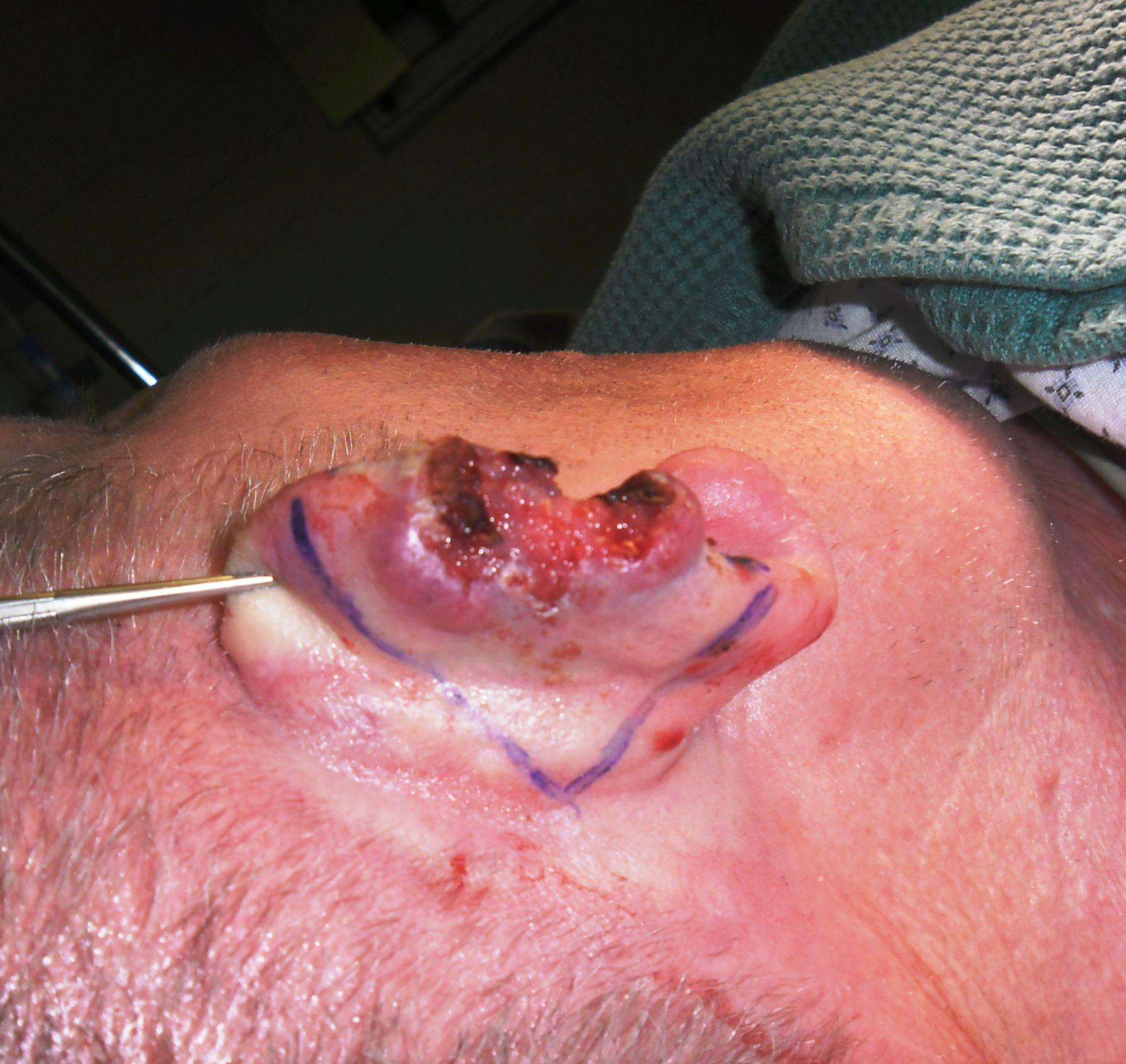 Carcinoma a cellule squamose della conca dell'orecchio