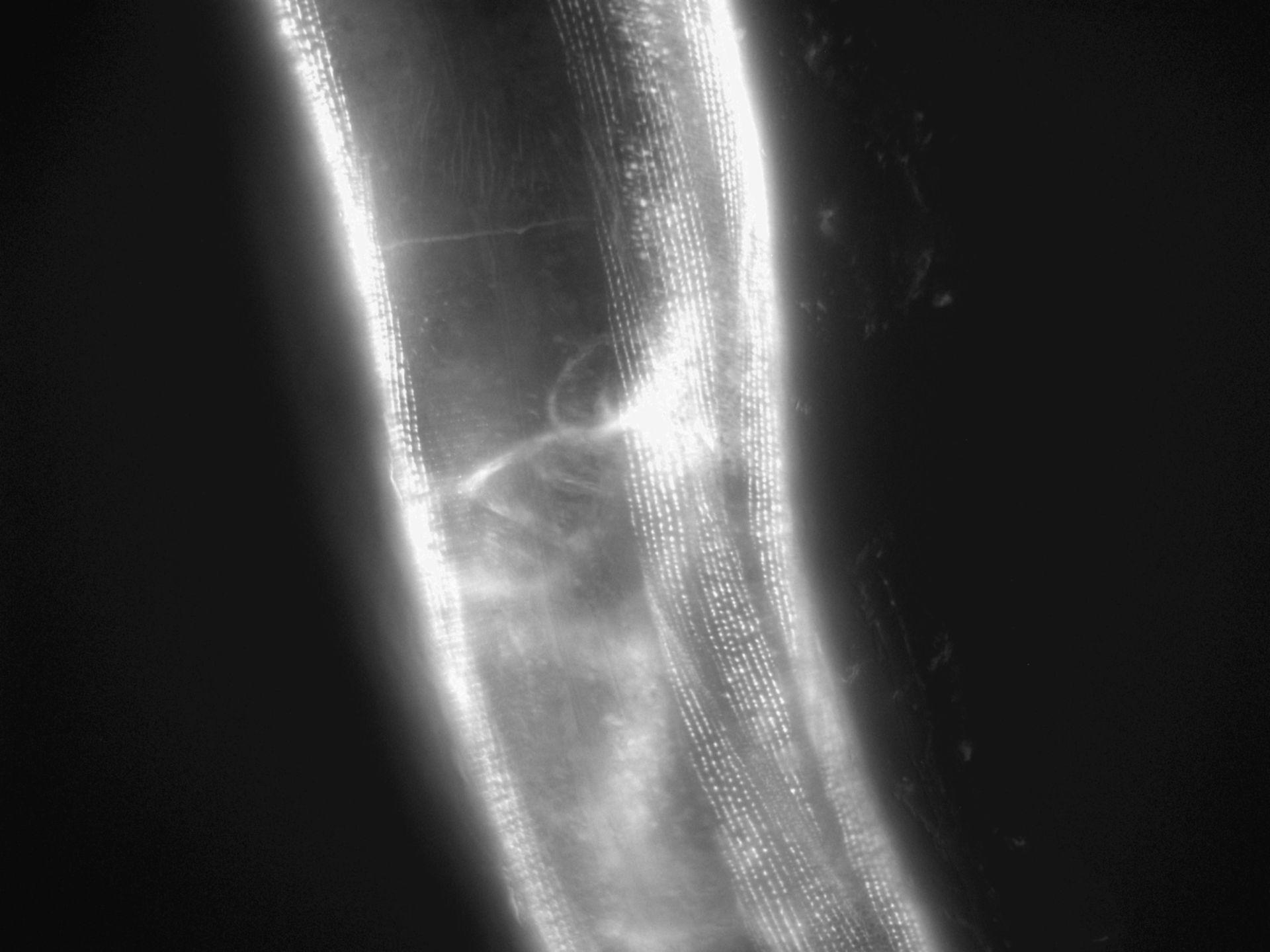 Caenorhabditis elegans (filamento di actina) - CIL:1116