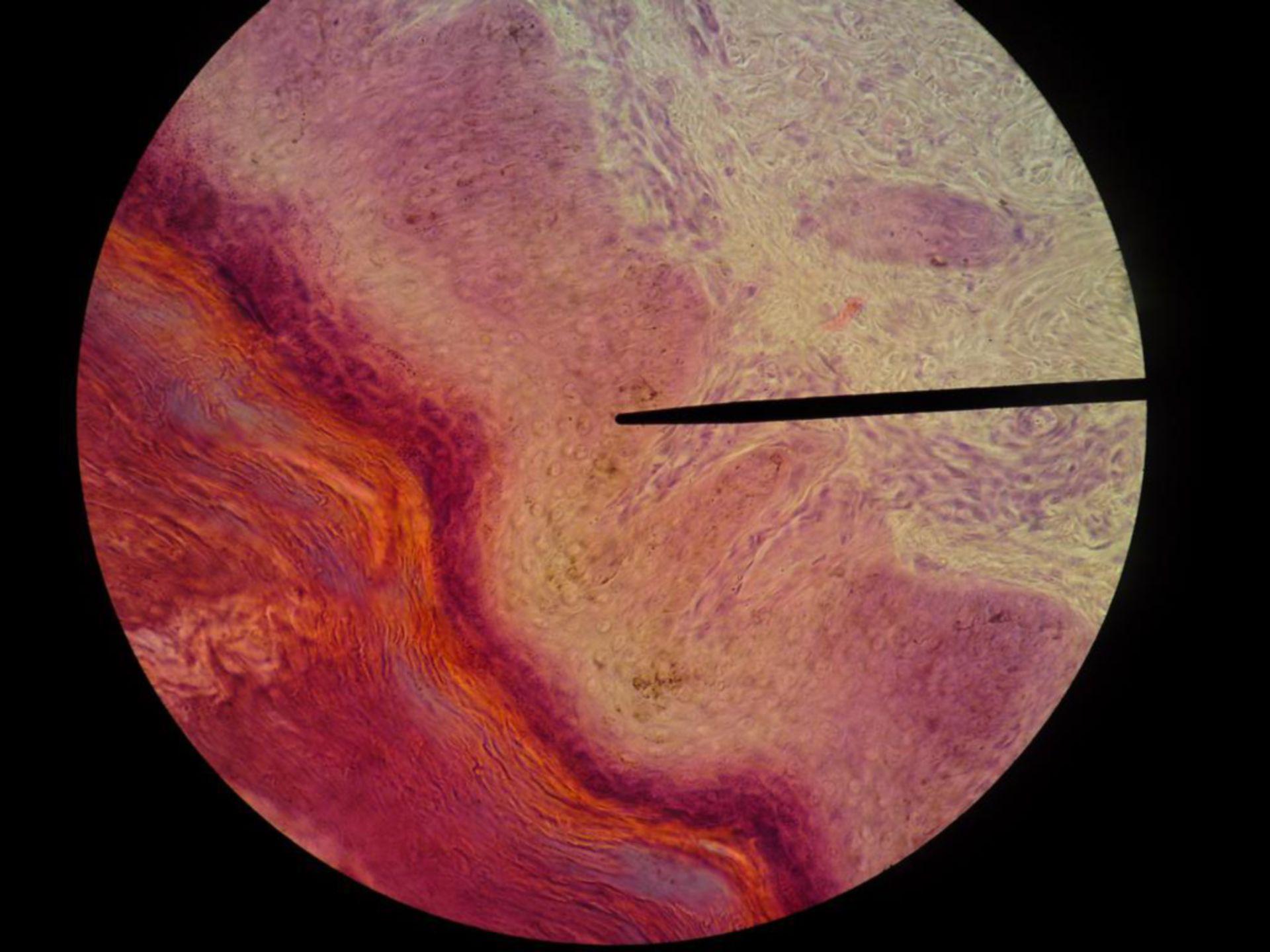 Vehorntes Plattenepithel, subepitheliales Bindegewebe - Sohlenballen Katze