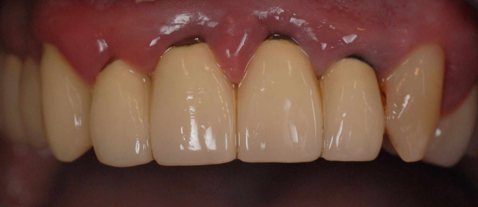 Tooth crown margins and gingivitis