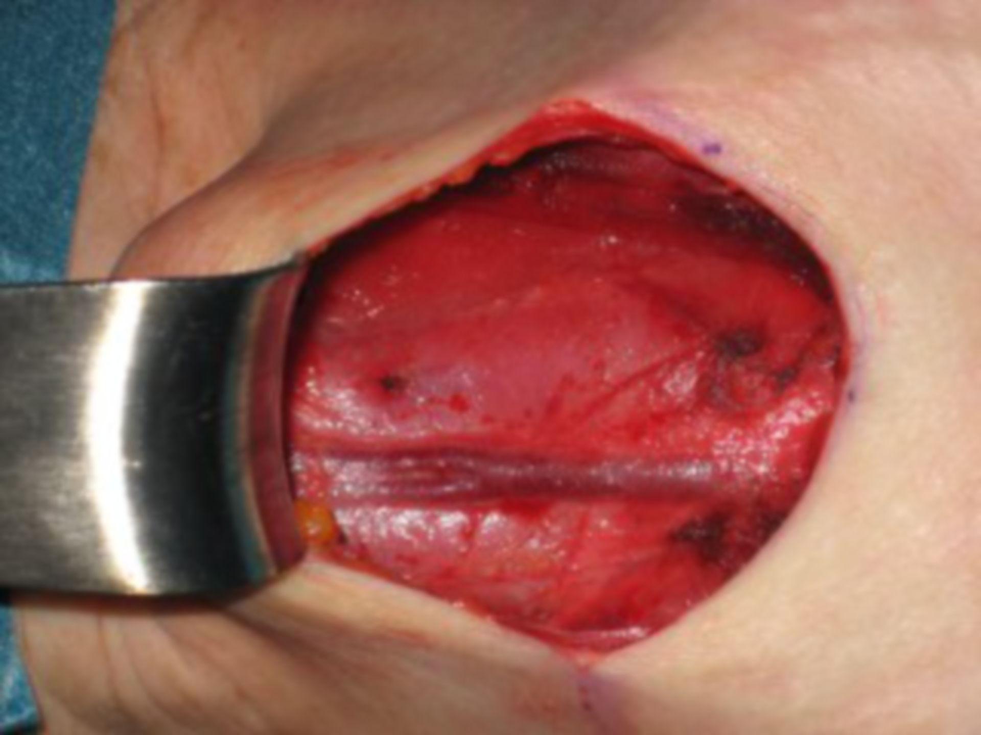 Preparation of the Thyroid Regin