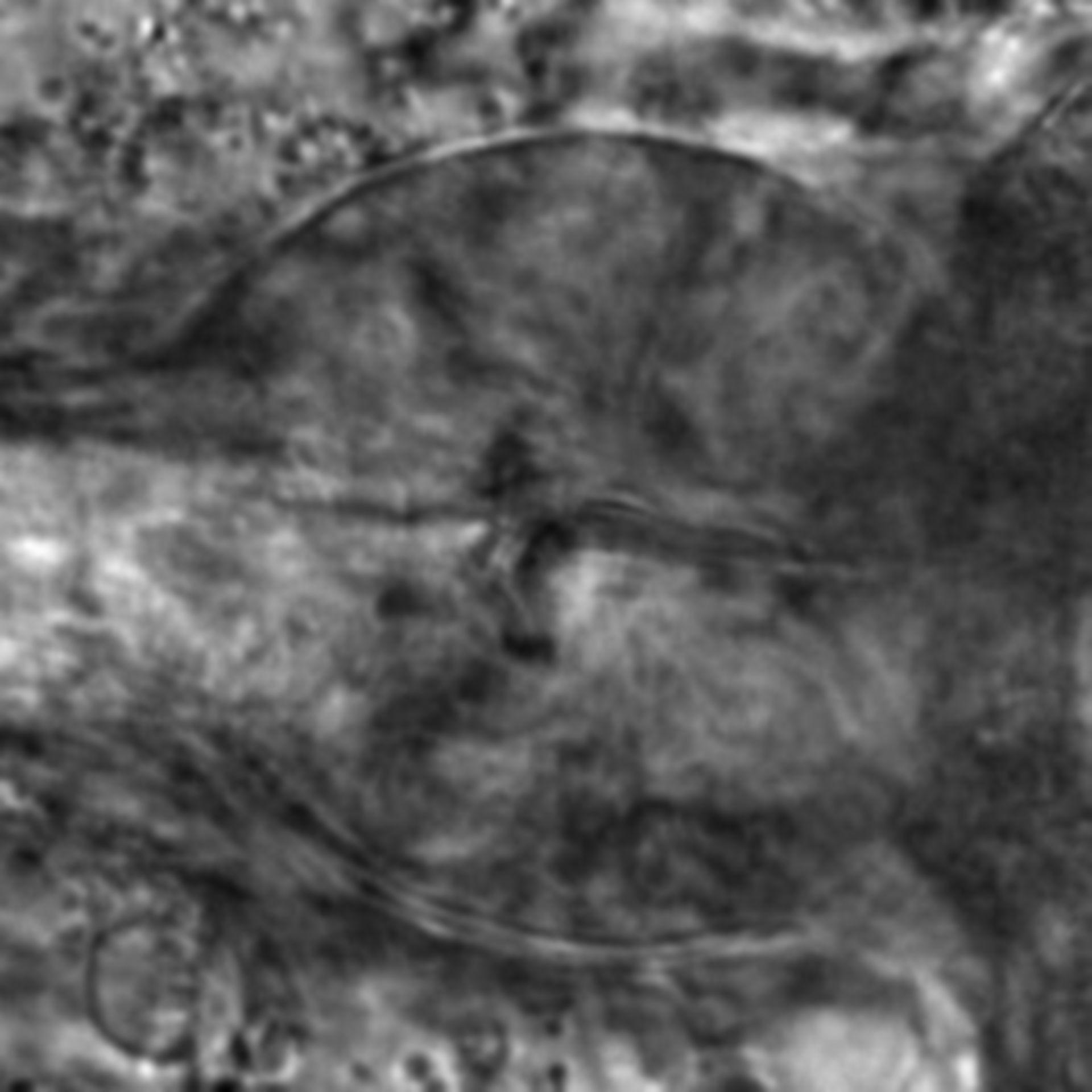 Caenorhabditis elegans - CIL:2146