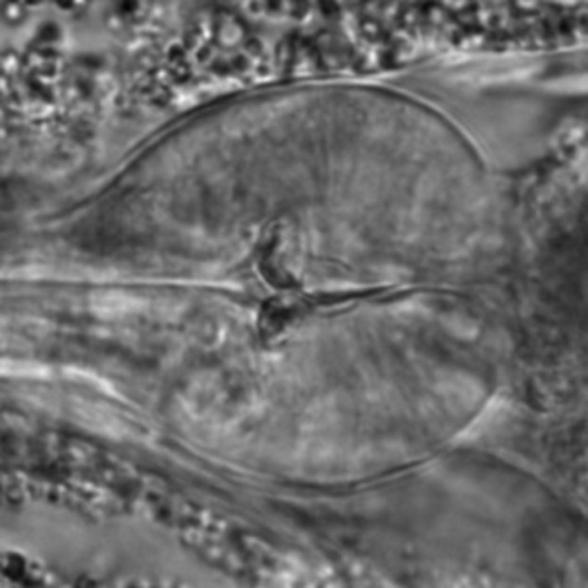 Caenorhabditis elegans - CIL:1737