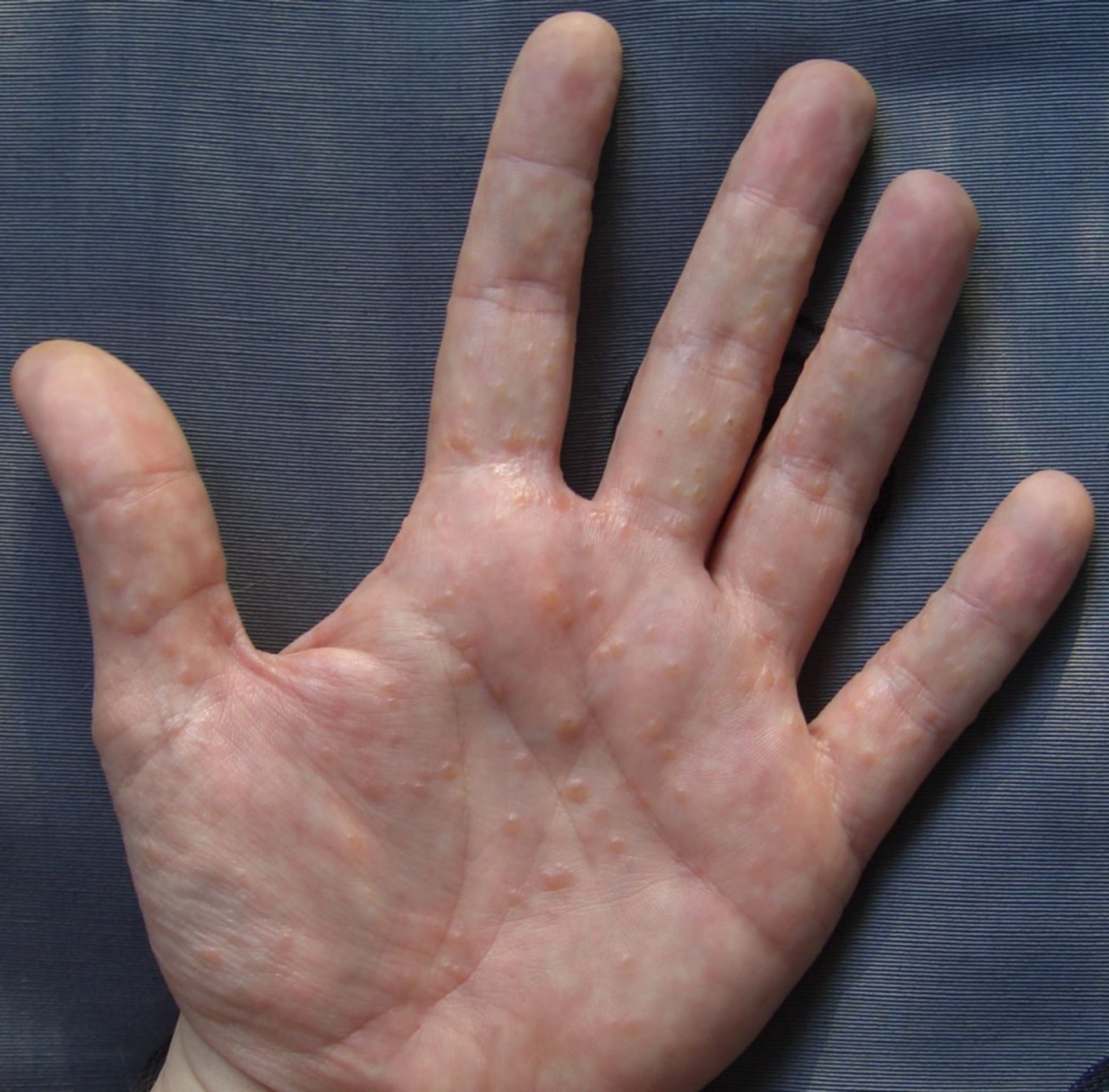 Dyshidrosis of the hand