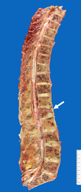 Carcinoma mammario: diffuso sviluppo di metastasi dello scheletro