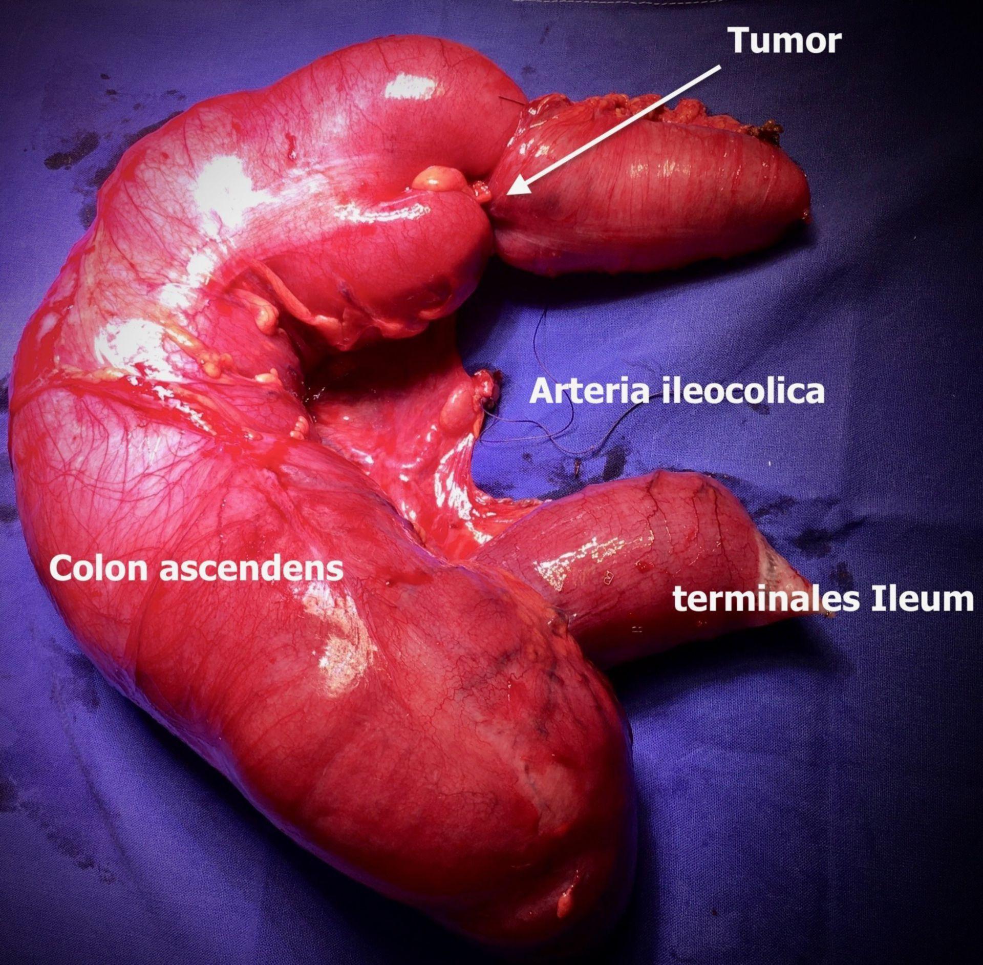 Hemikolektomie rechts bei Ca rechte Flexur