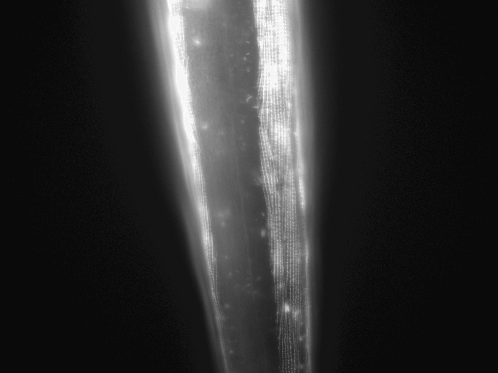Caenorhabditis elegans (Actin filament) - CIL:1035