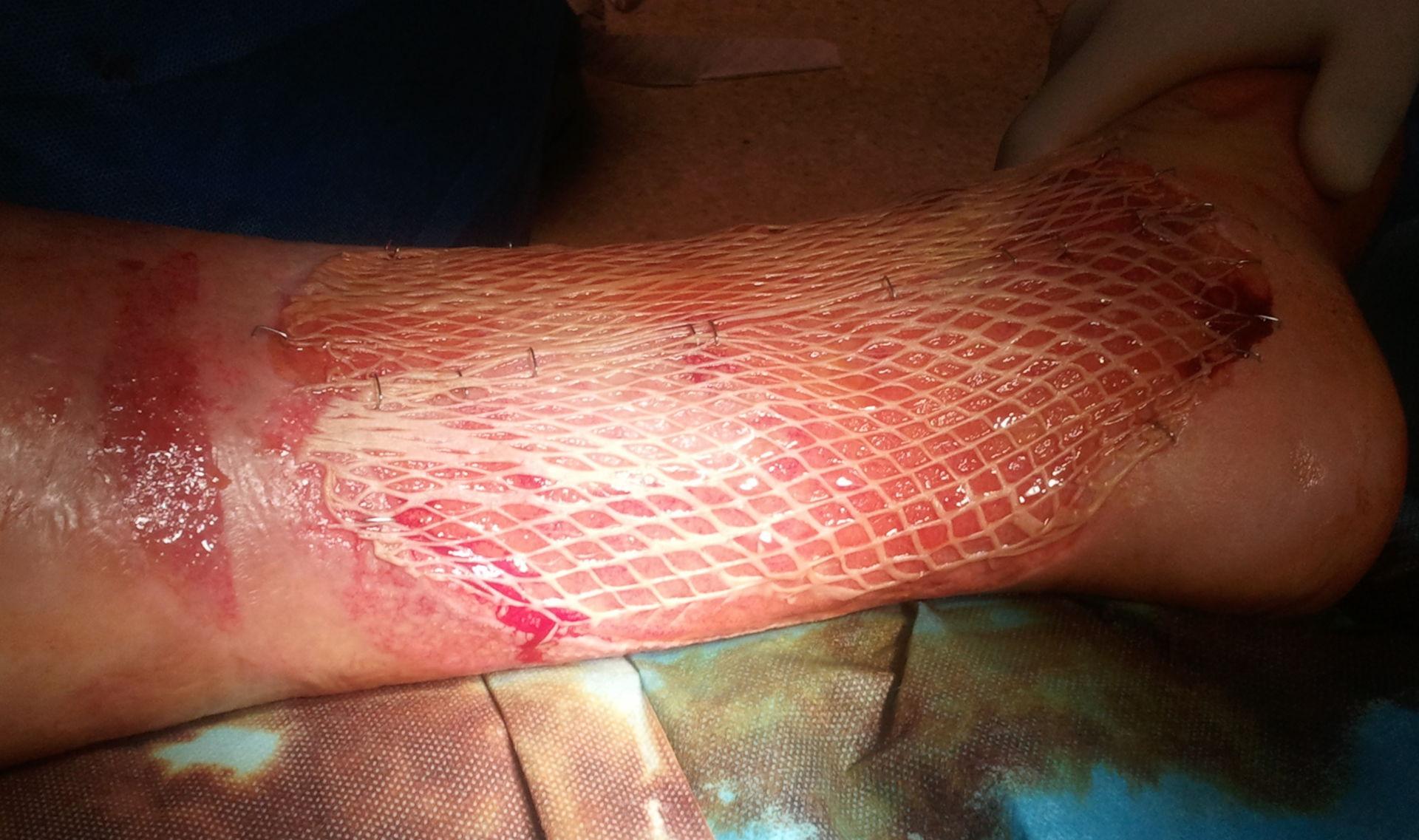 Ulcera crurale - Meshgraft