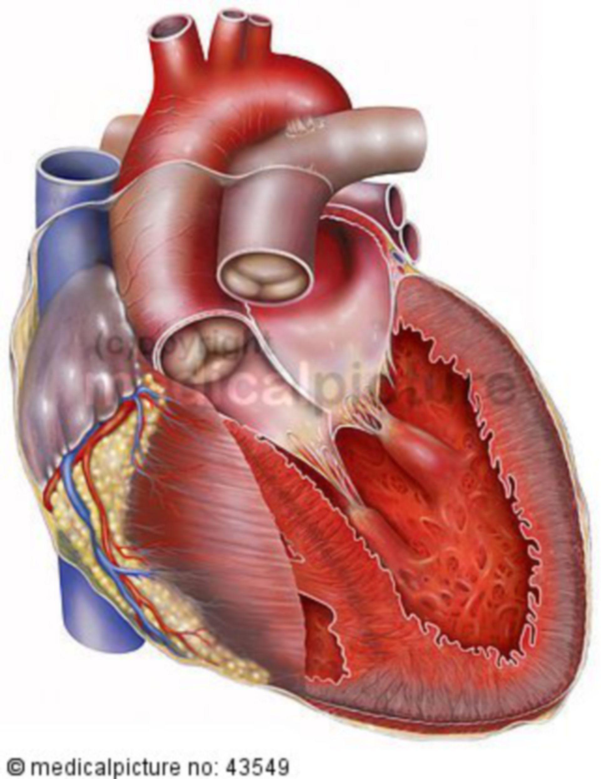 Heart failure, heart in cross-section