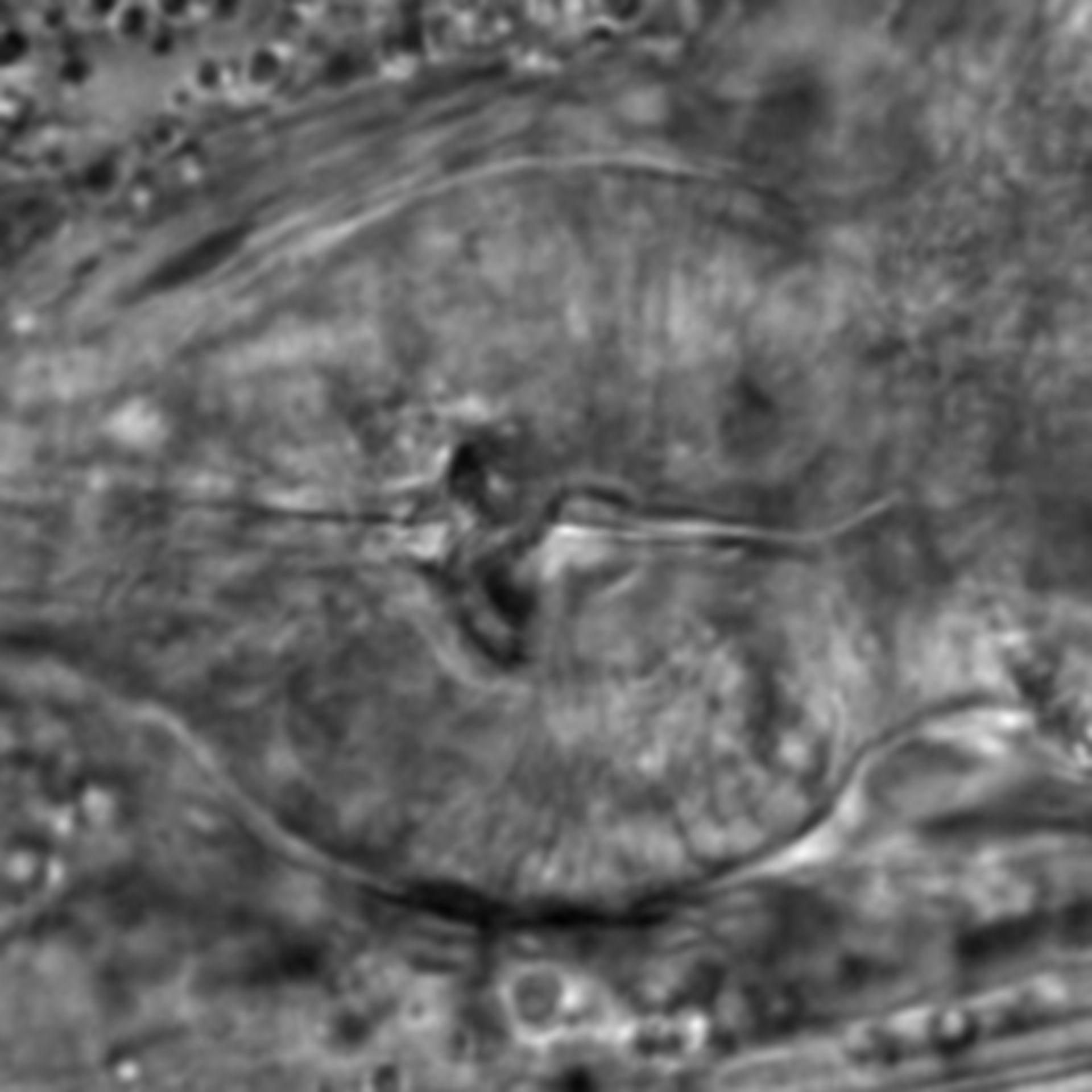 Caenorhabditis elegans - CIL:1753