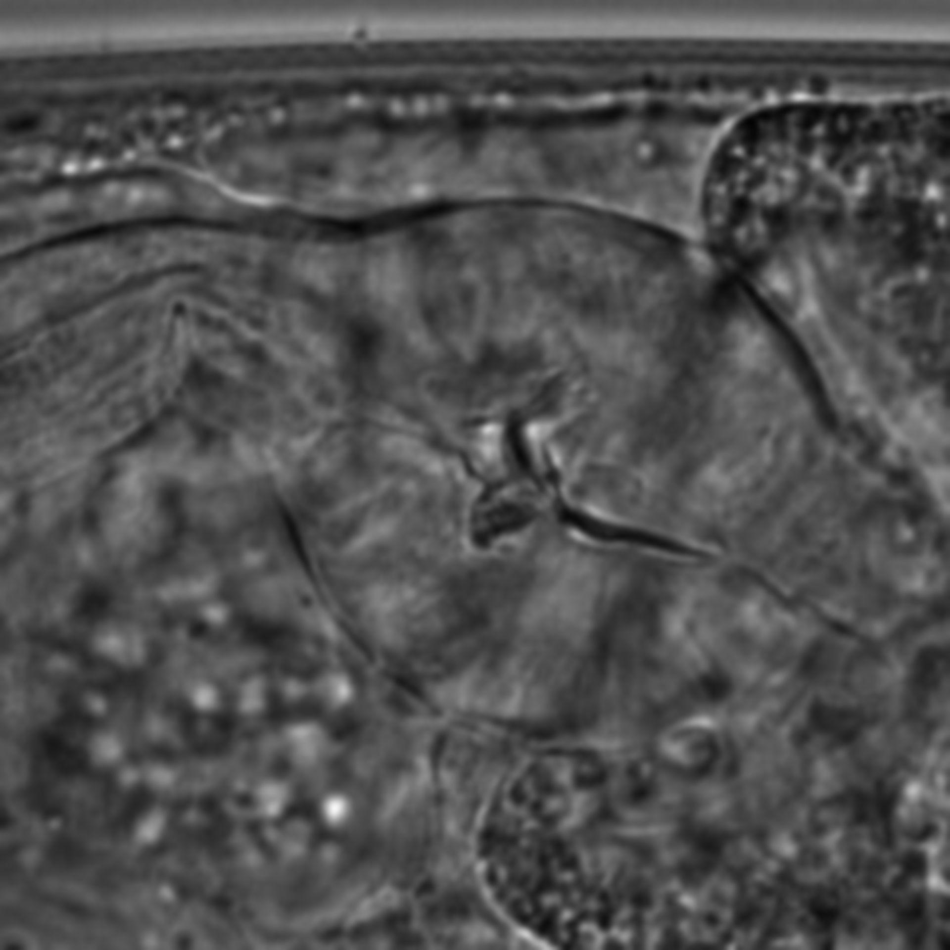 Caenorhabditis elegans - CIL:1659