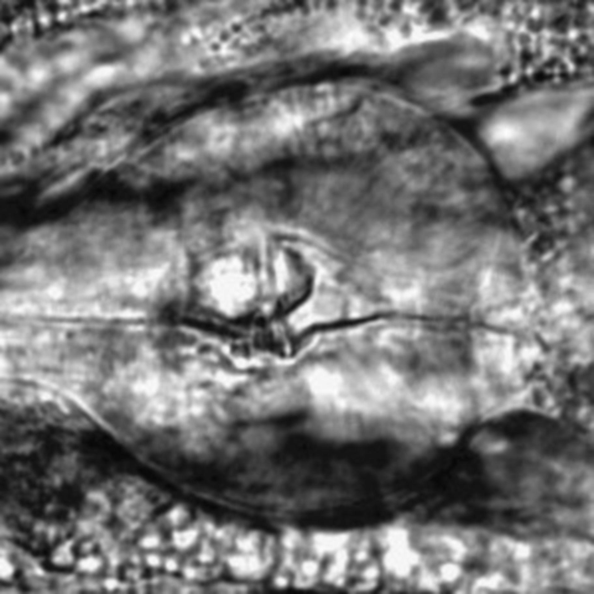 Caenorhabditis elegans - CIL:2308