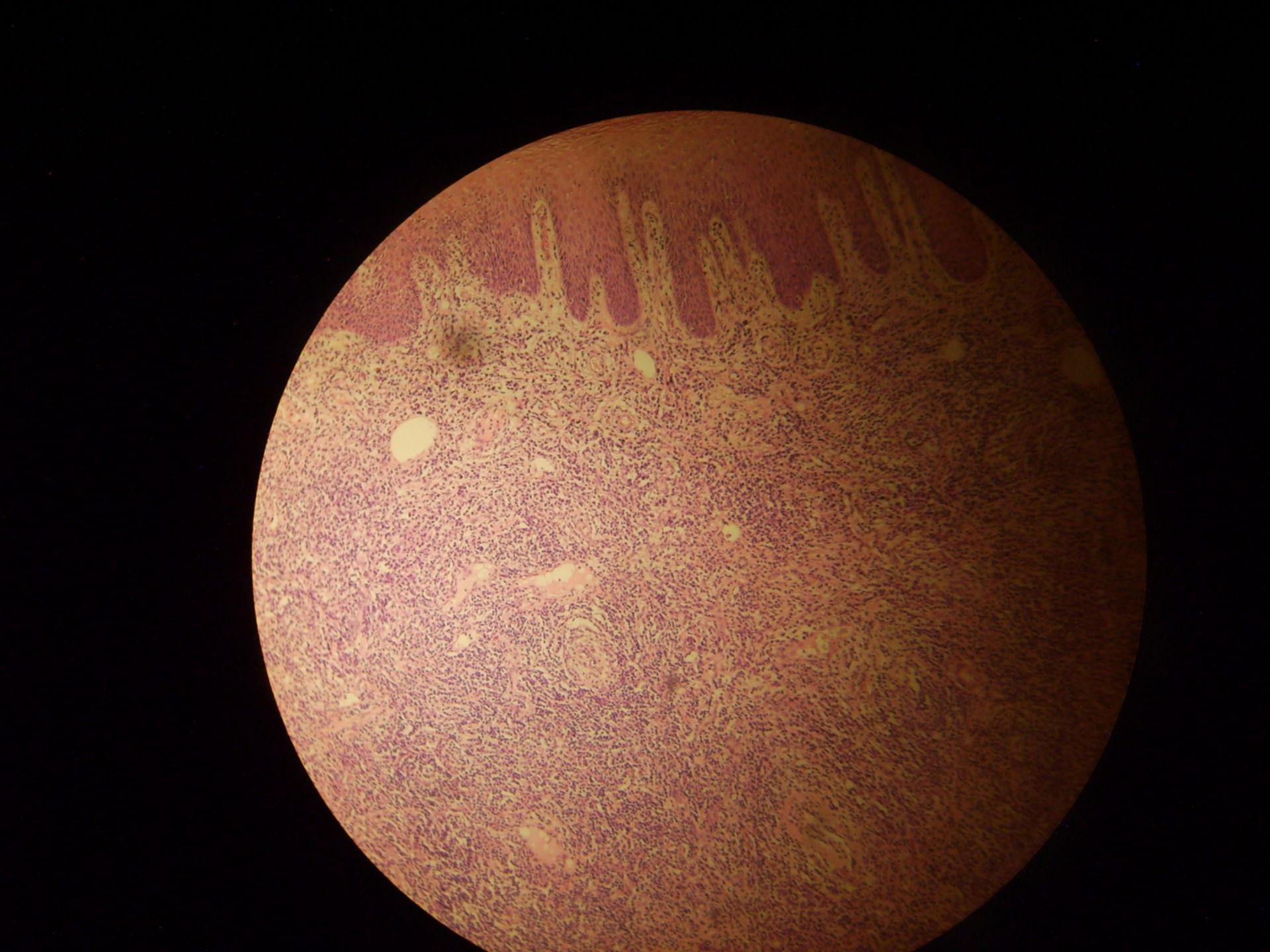Sifilitico affettivo primario