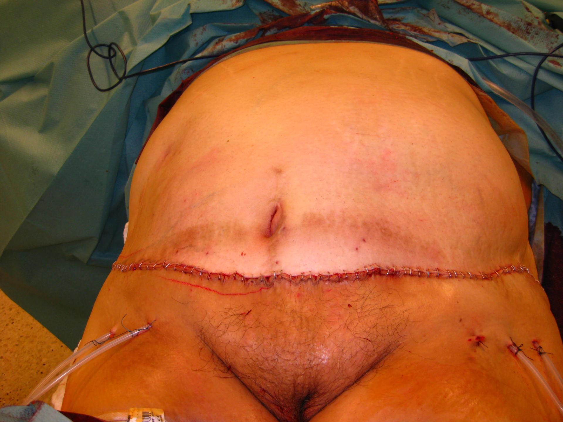 Obesità - dopo l'intervento