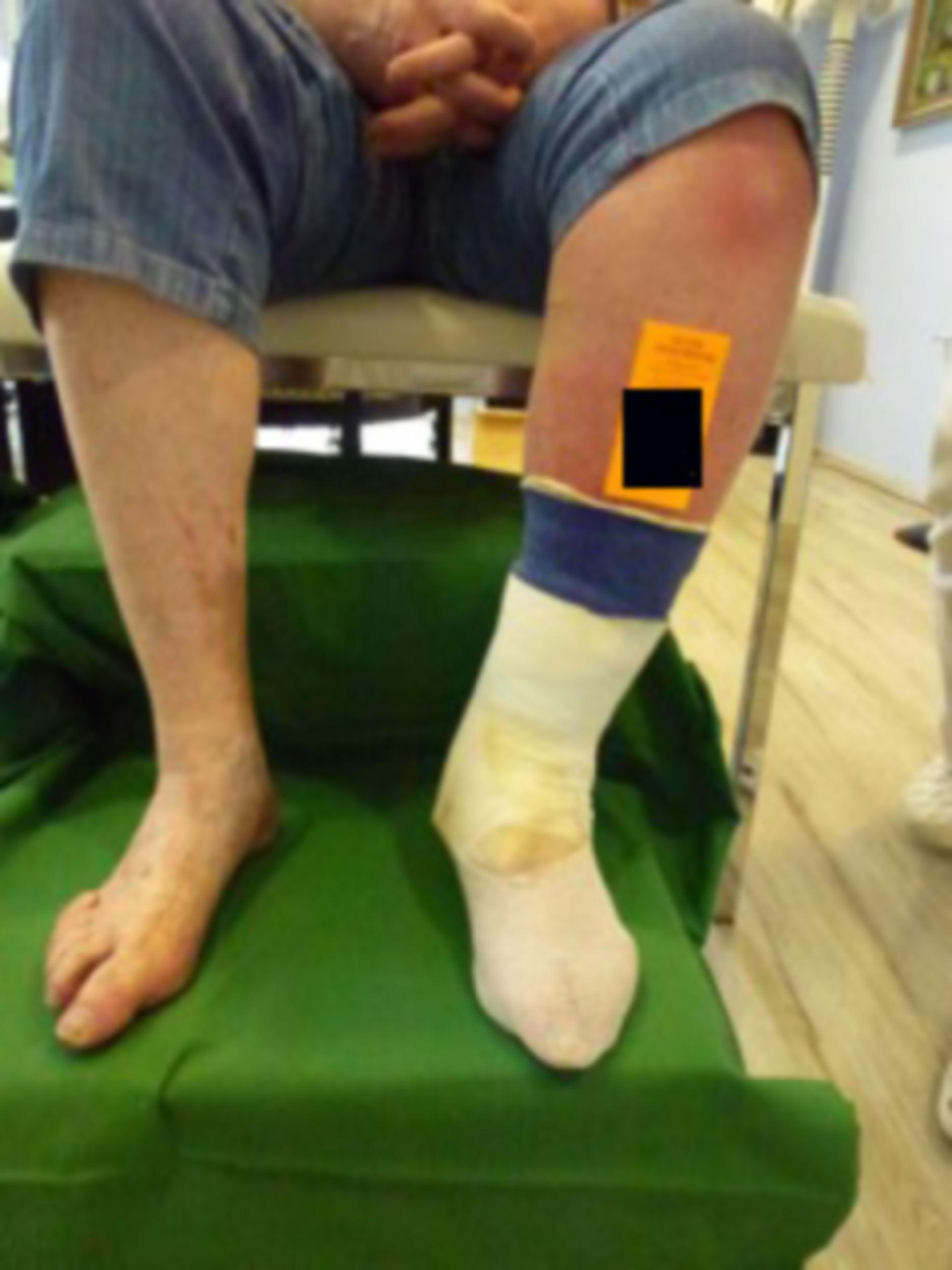 Úlcera de la pierna - Cerrada dentro de 72 horas (1)