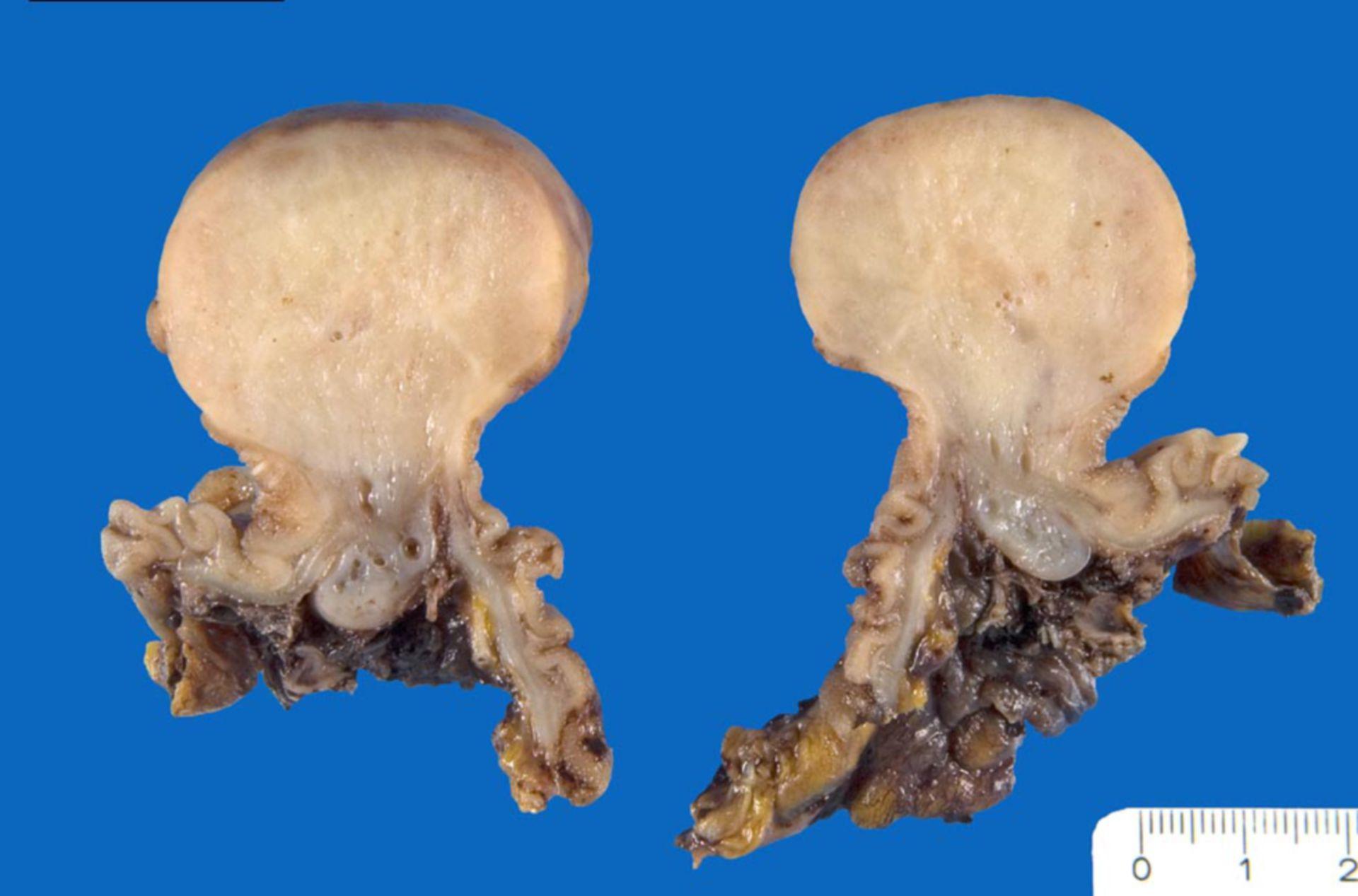 Inflammatory fibroid polyp