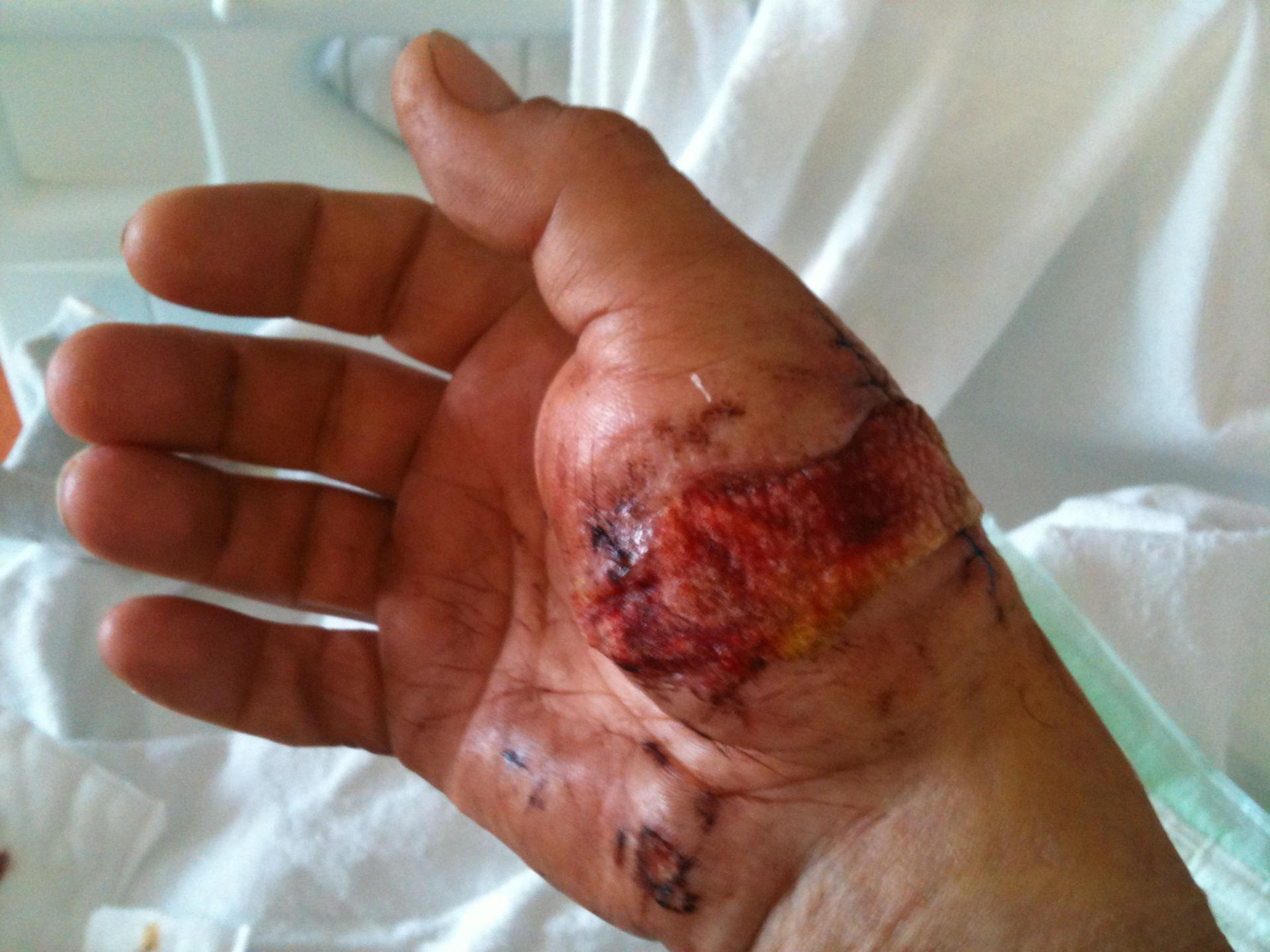 Bissverletzung - Hand nach notfallmäßiger OP