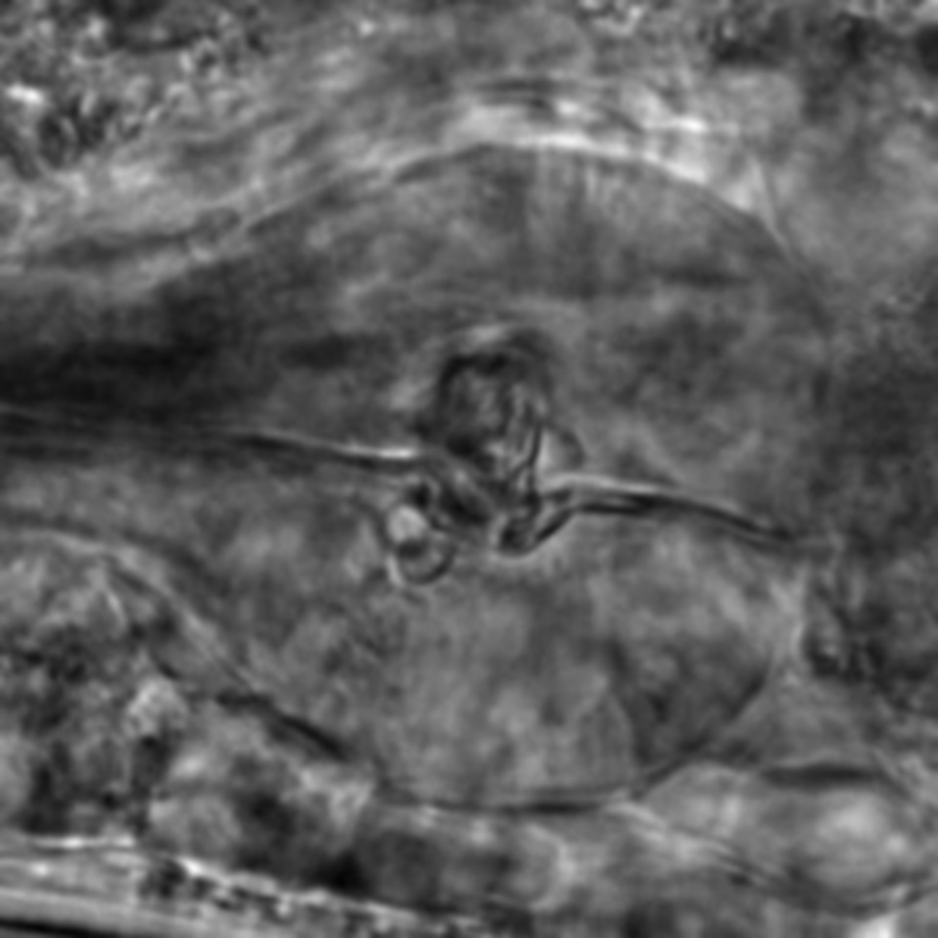 Caenorhabditis elegans - CIL:1908