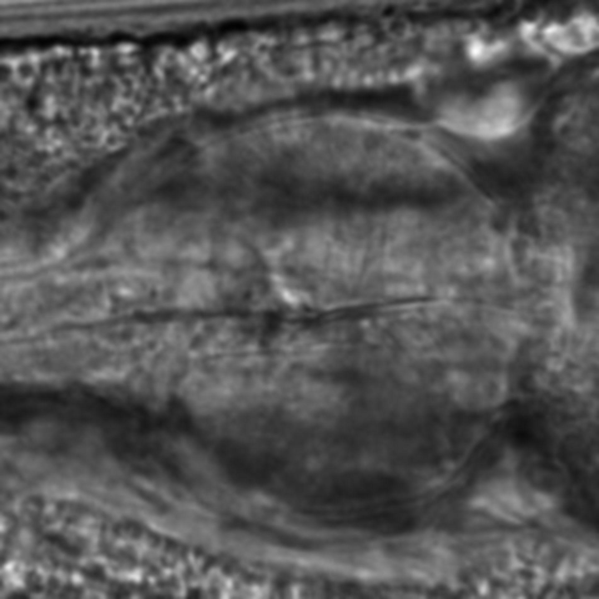 Caenorhabditis elegans - CIL:2190
