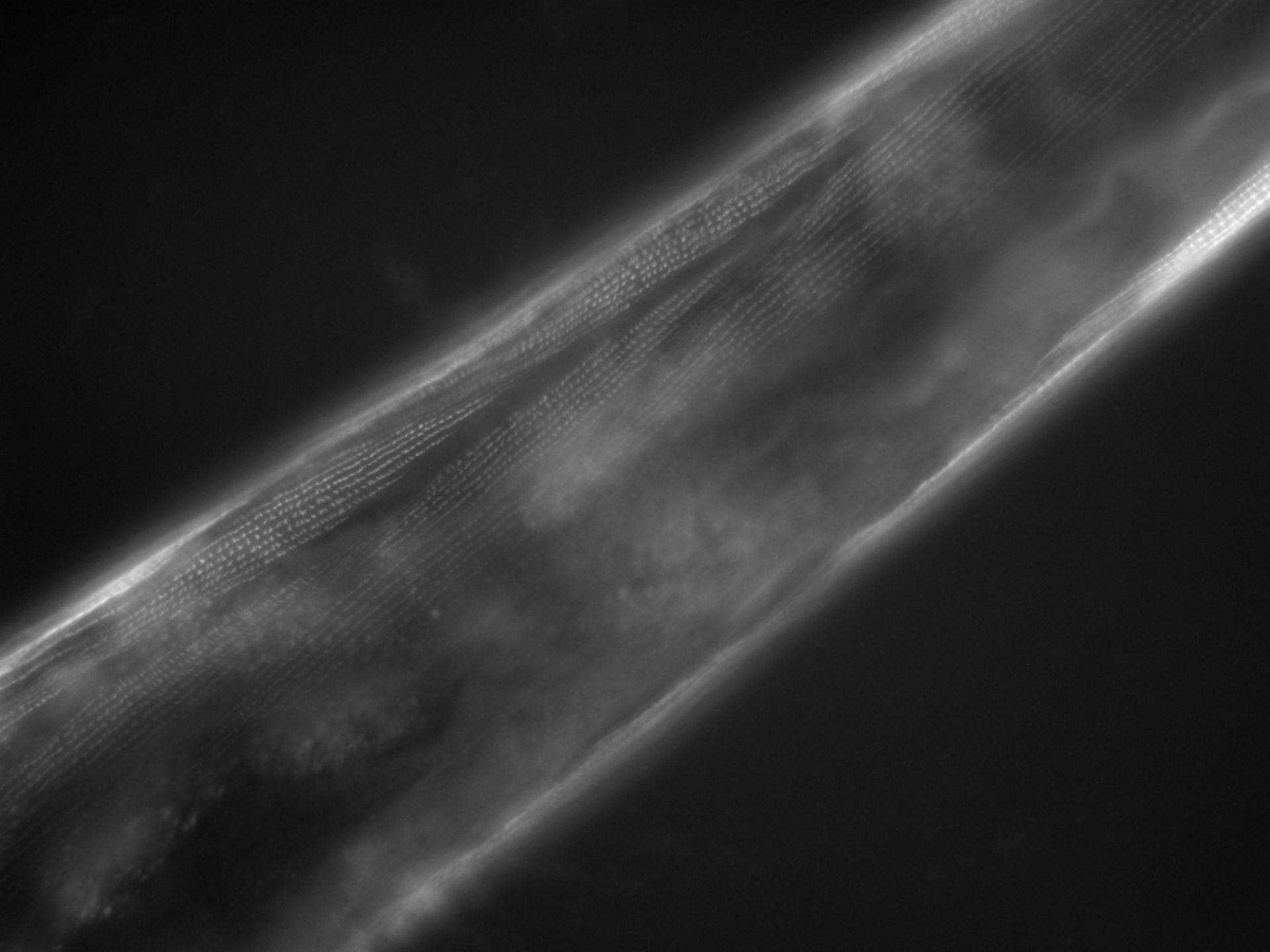 Caenorhabditis elegans (Actin filament) - CIL:1126