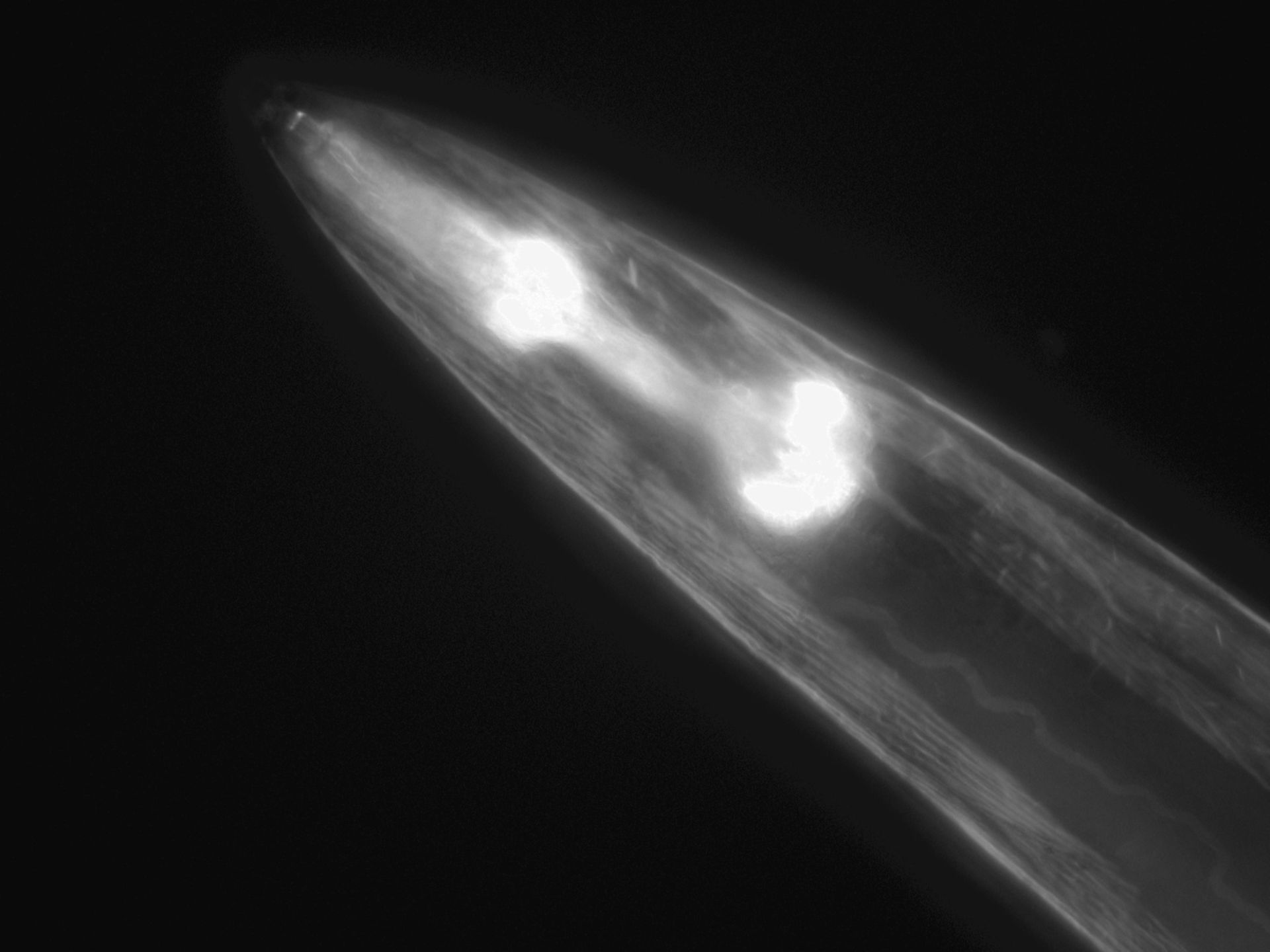 Caenorhabditis elegans (Actin filament) - CIL:1289