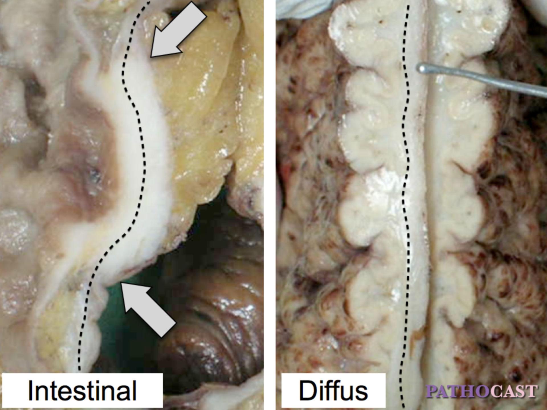 Classificazione di Lauren del carcinoma gastrico
