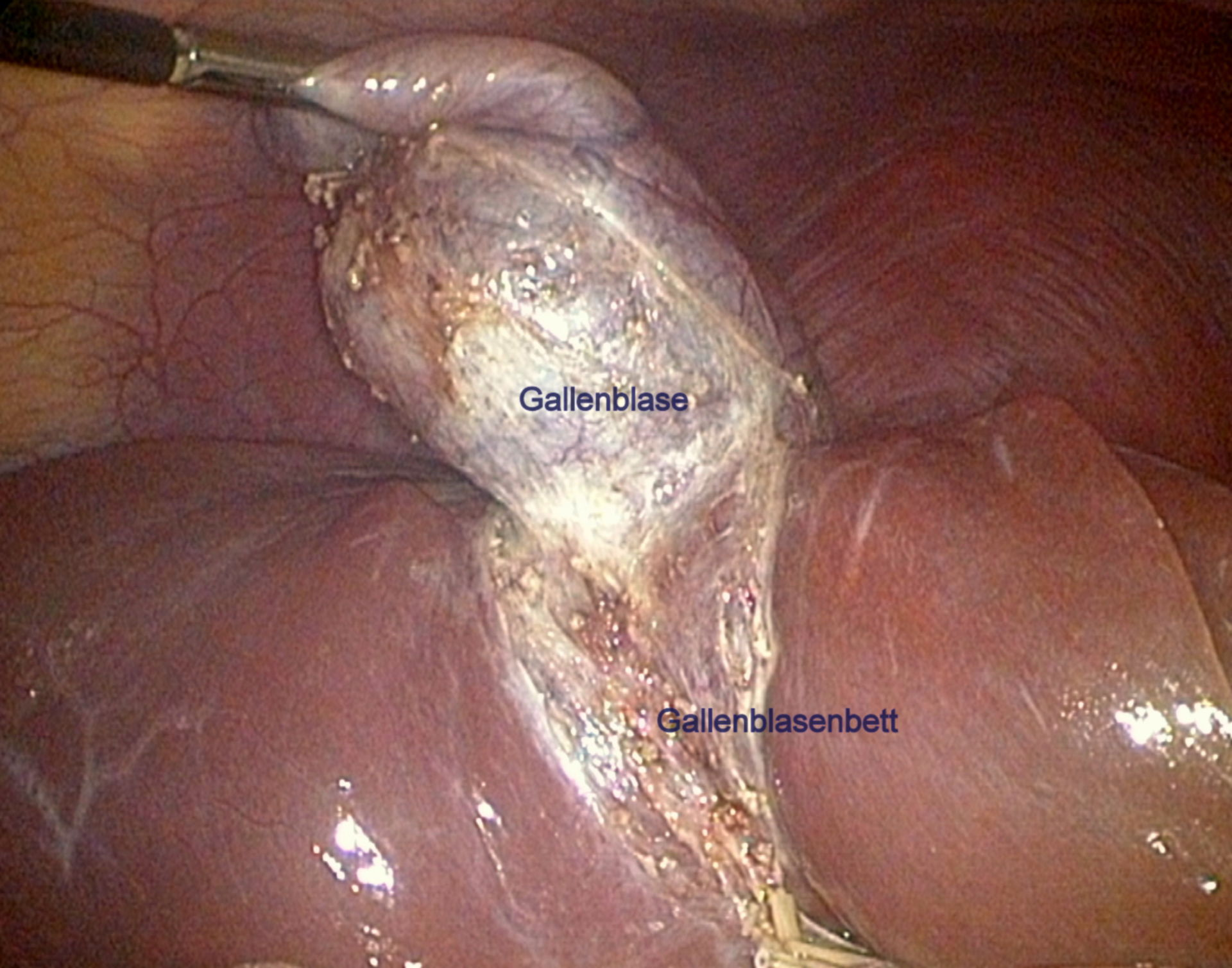 Gall bladder just before the removal