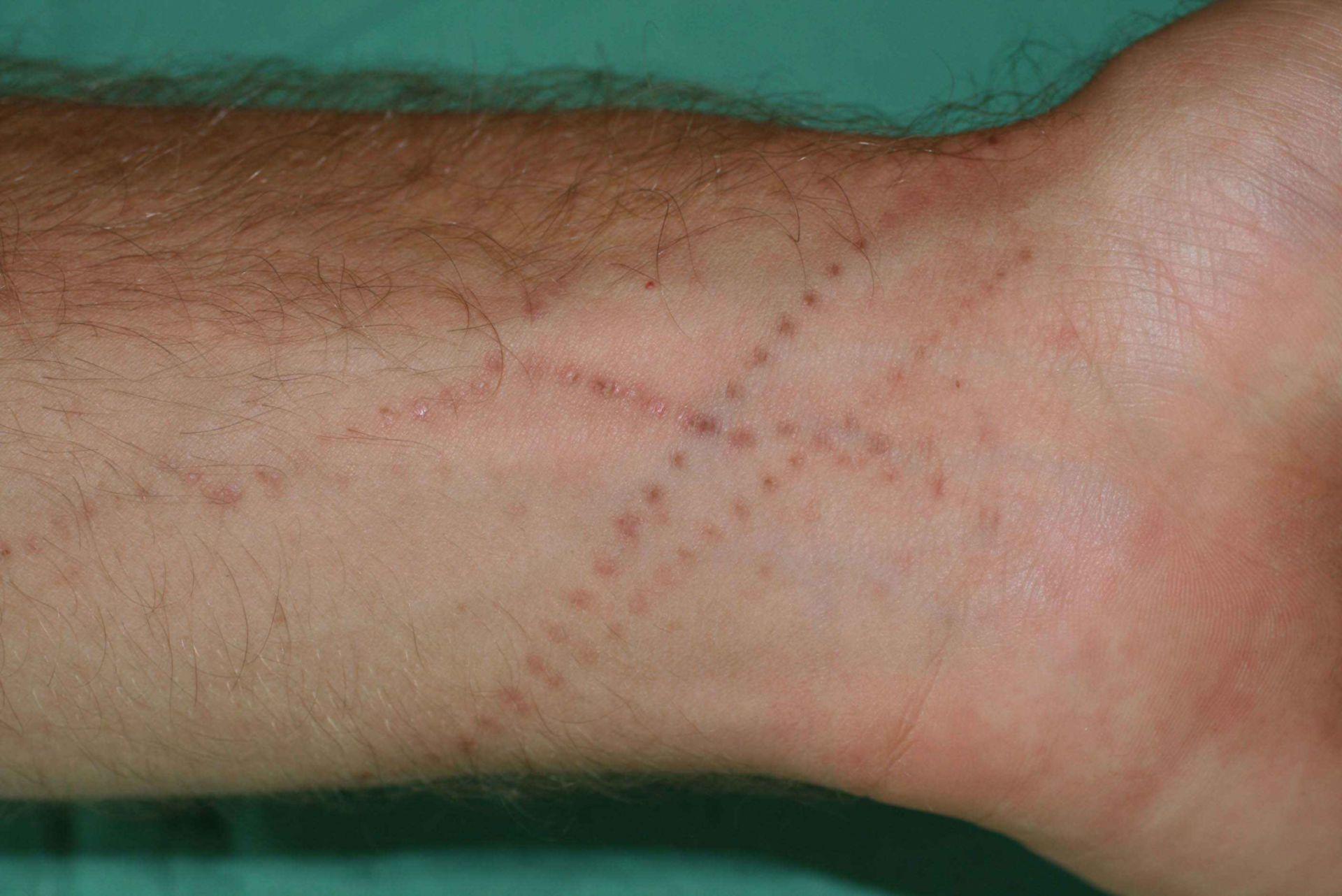 Badeverletzung Portugisische Galeere Qualle Physalia physalis (2)