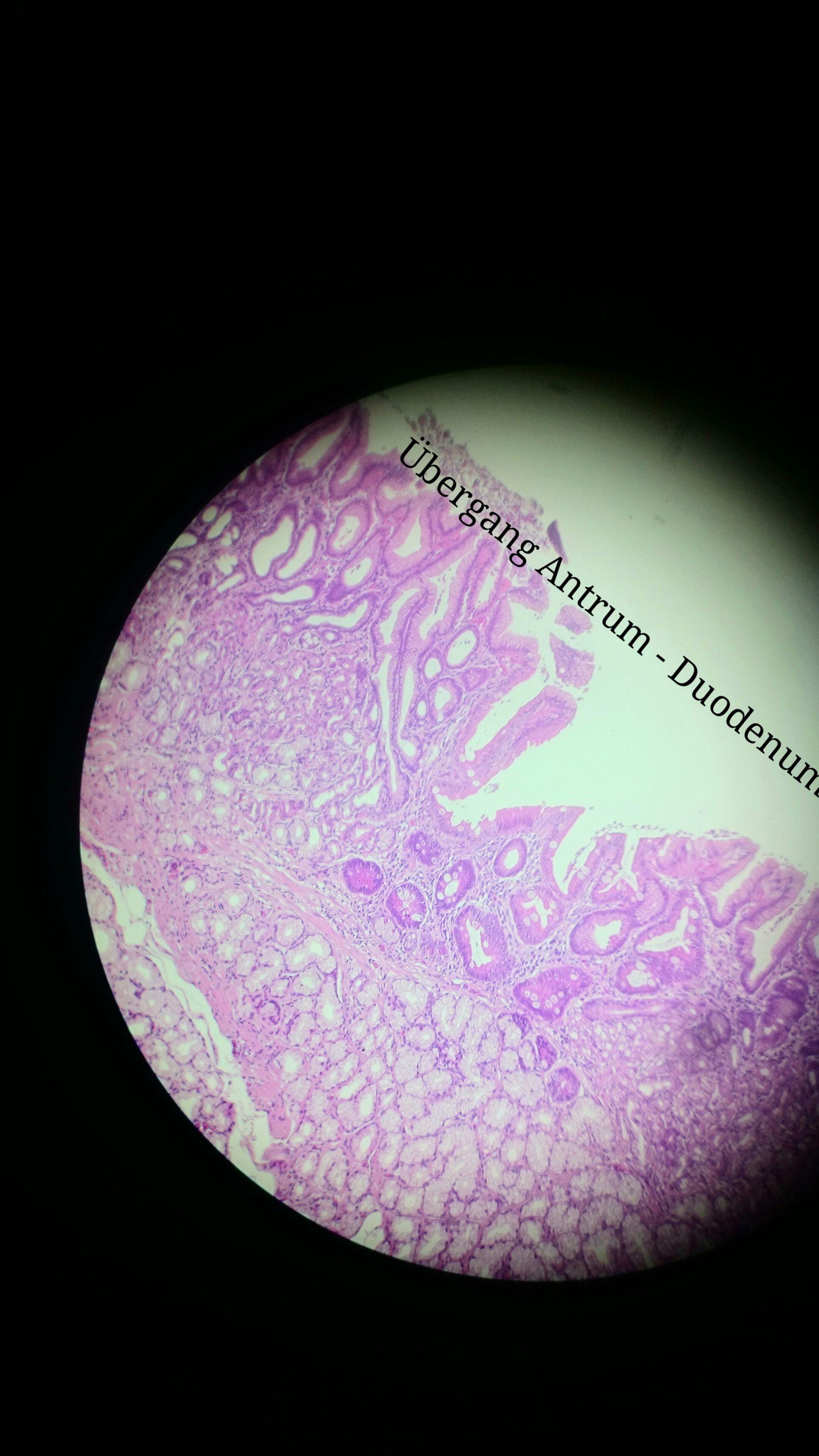 Pylorus (2)