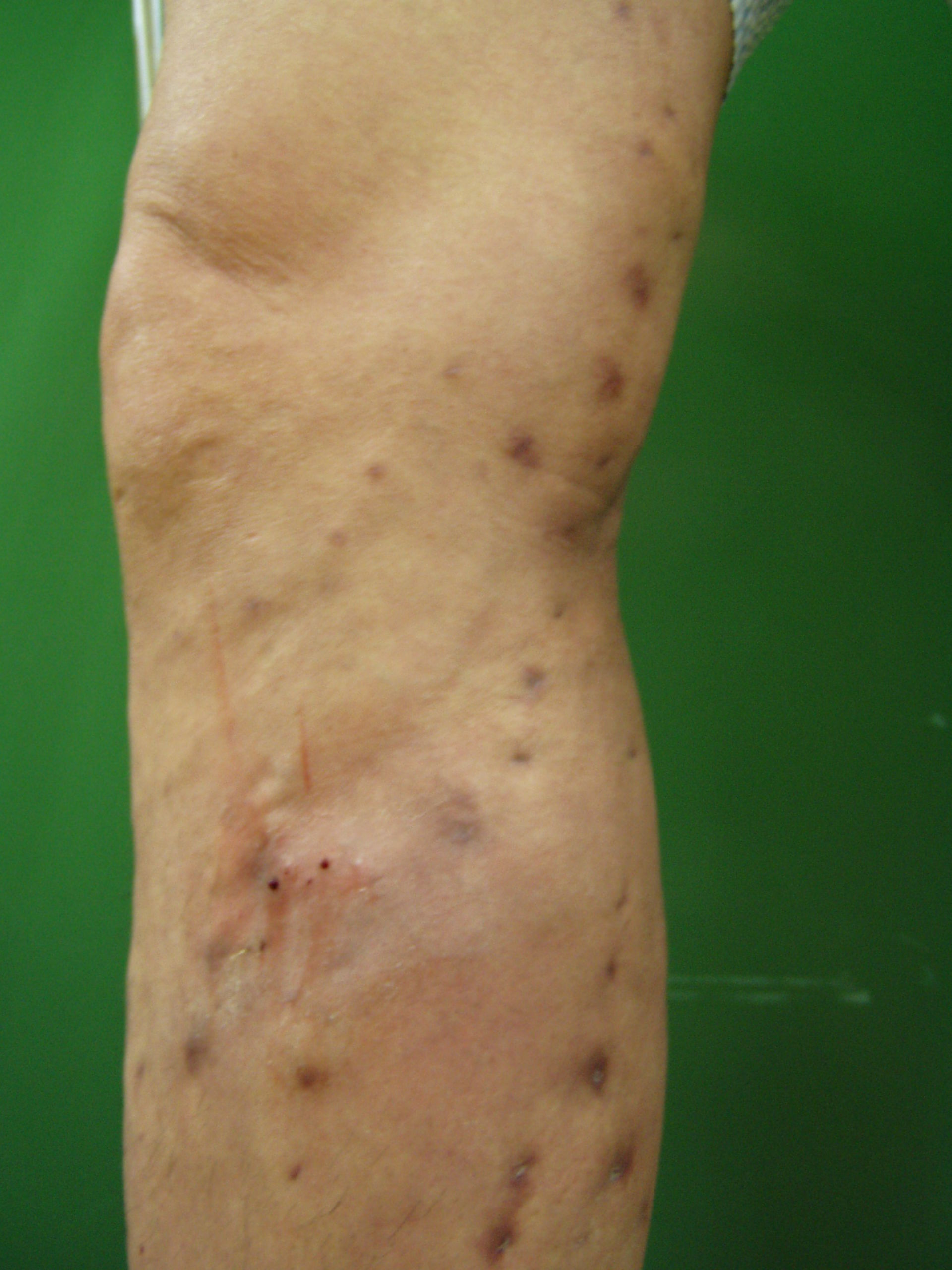 Vene varicose Kang.t.h 56 / m postop 1 mese. Cryostripping di GSV e flebectomia con Varady Hook.