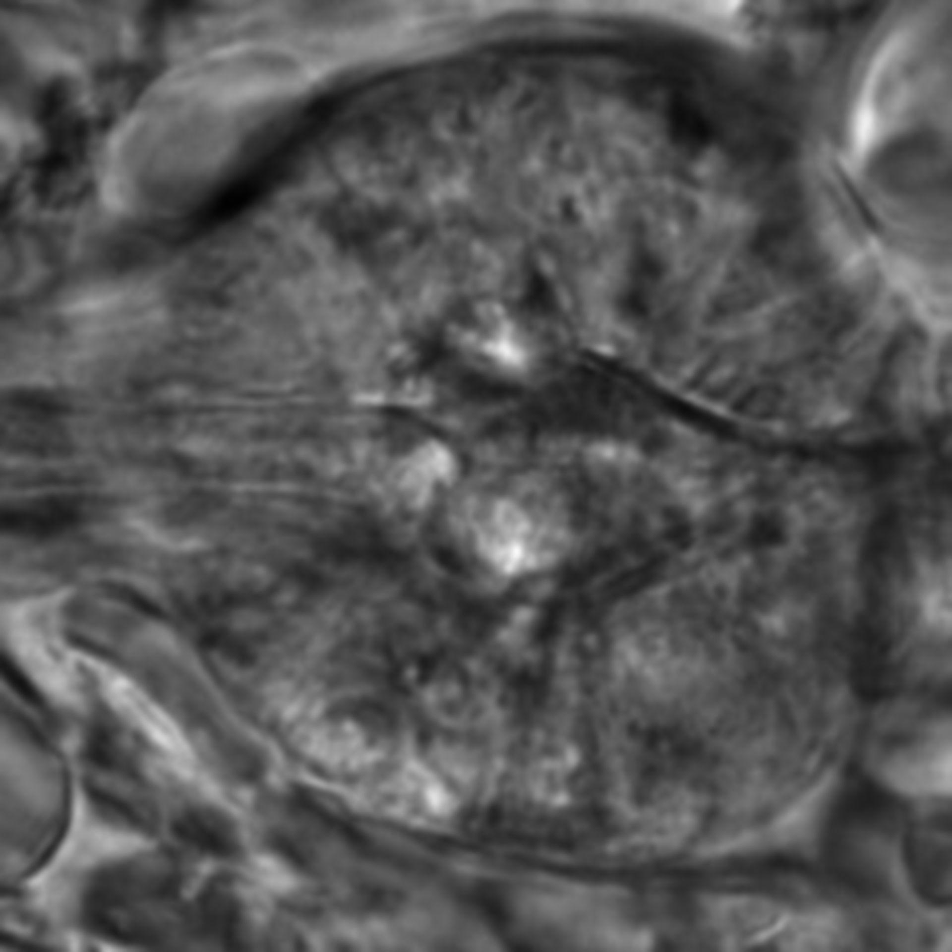 Caenorhabditis elegans - CIL:2651