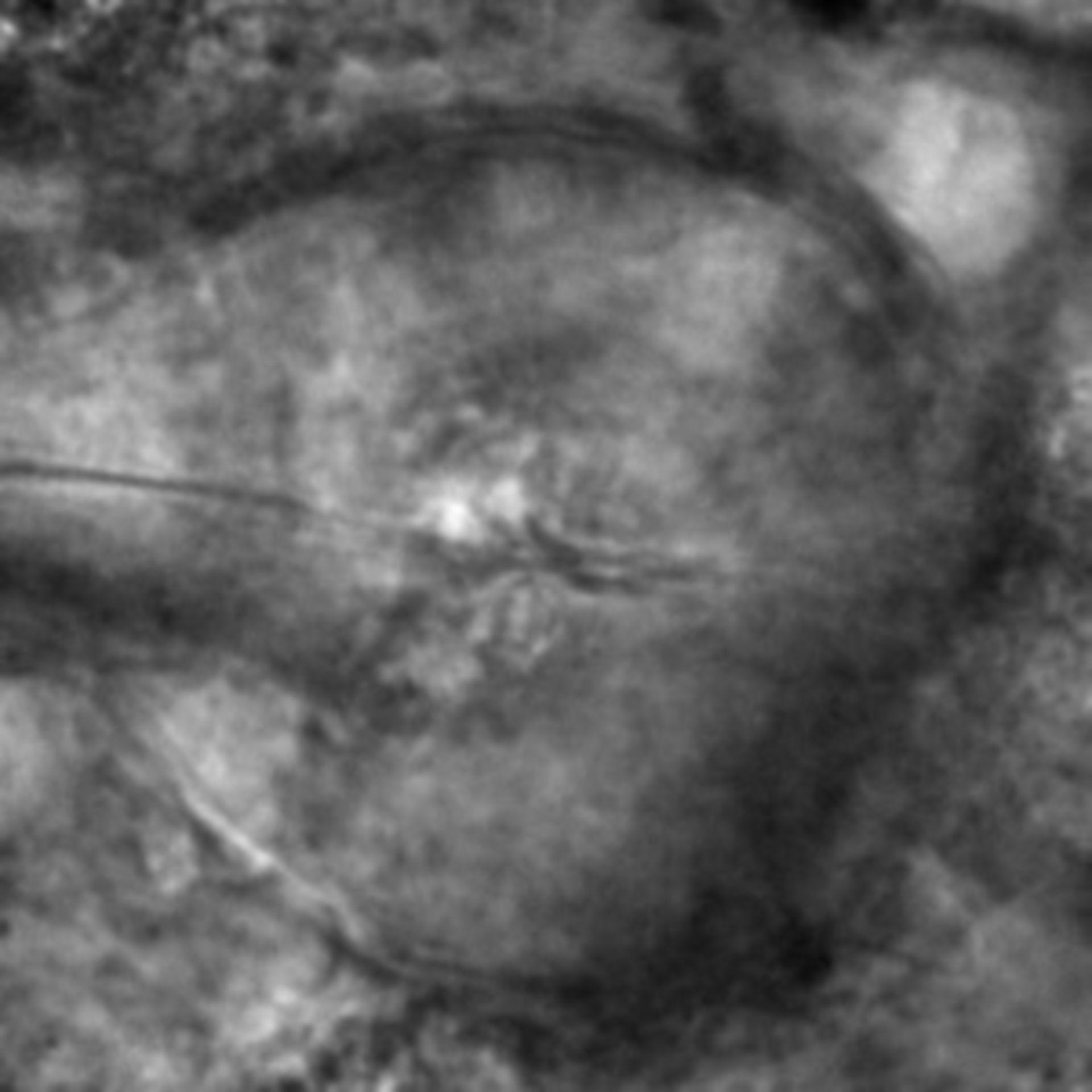 Caenorhabditis elegans - CIL:2279